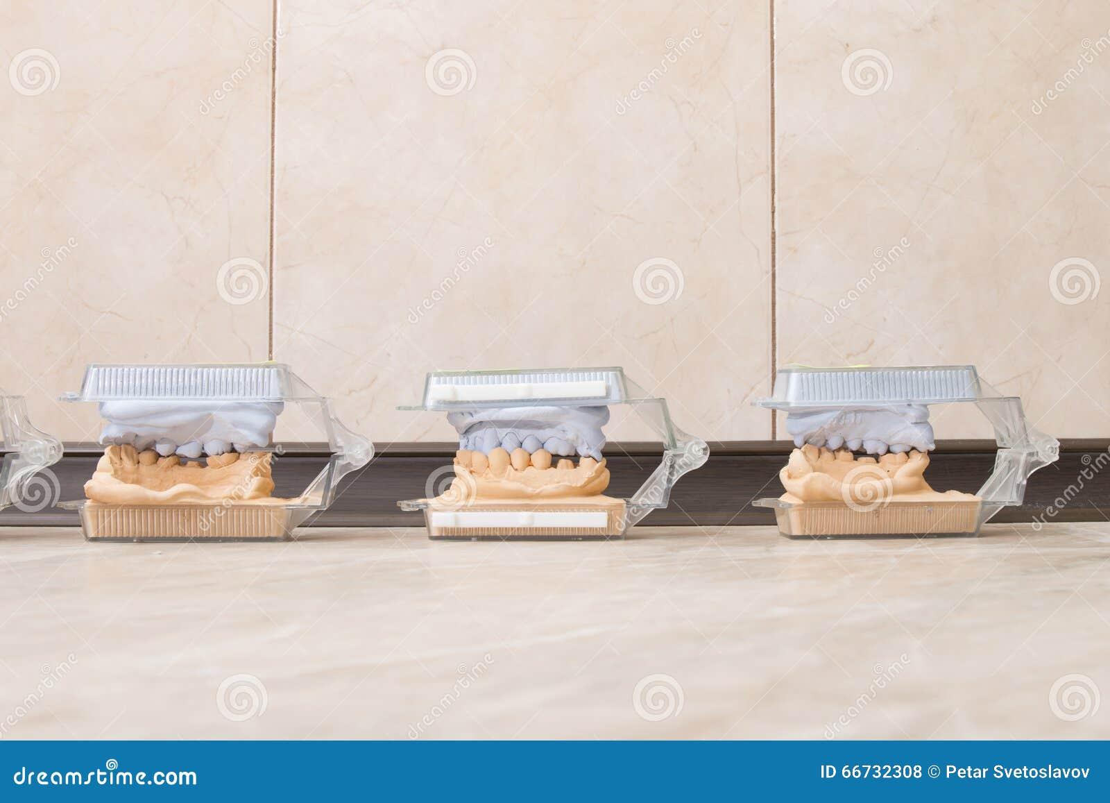 Le gypse dentaire de bâti modèle le plâtre