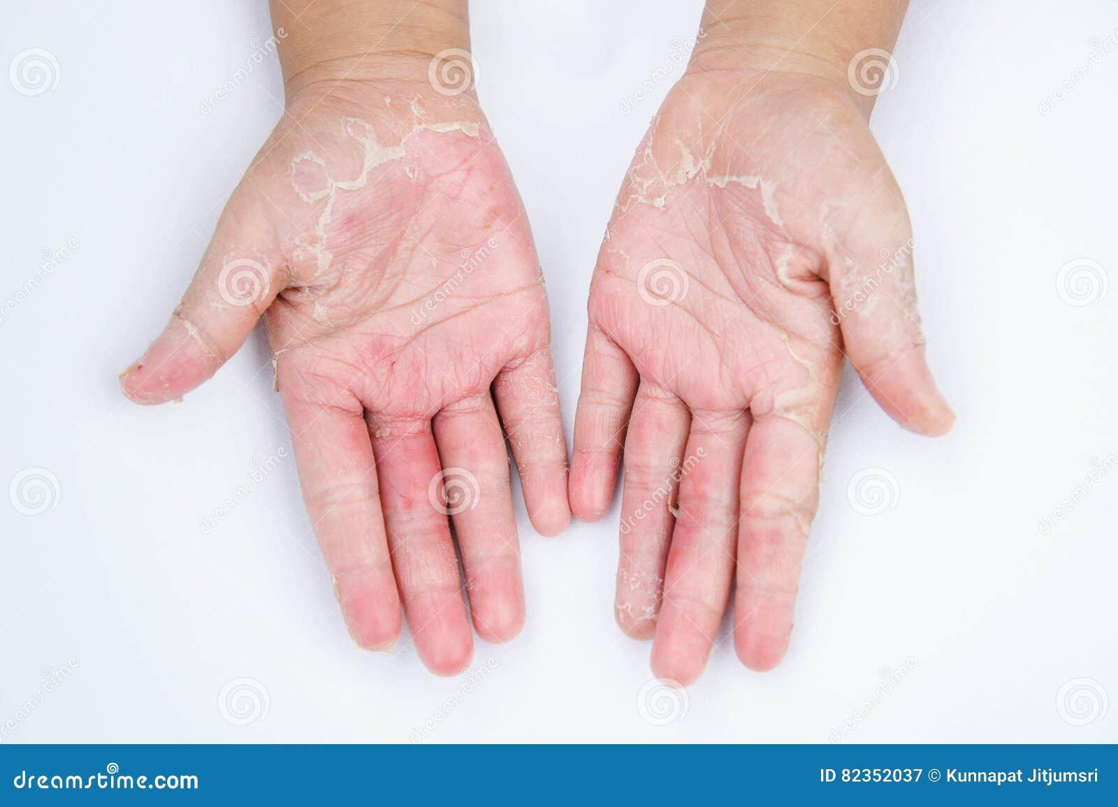 Le mani asciutte, buccia, dermatite da contatto, micosi, pelle inf