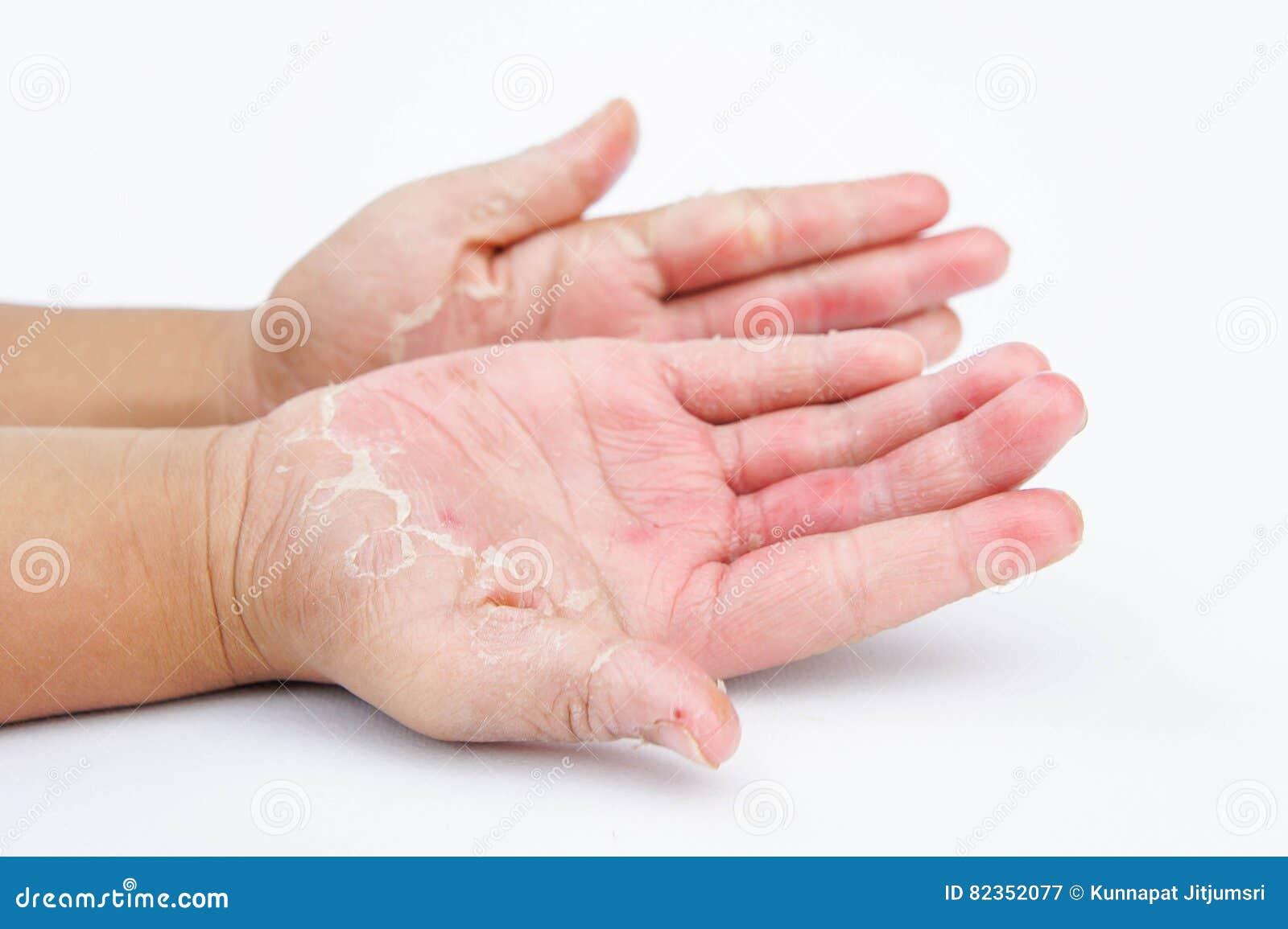 Come curare la psoriasi su unghie di gambe