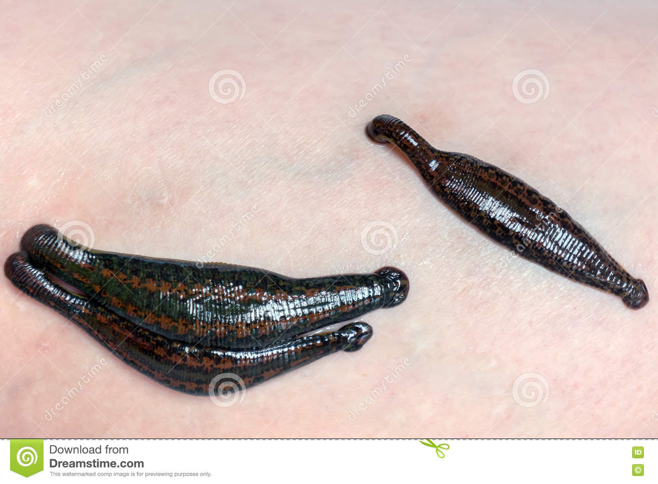 The use of leeches in modern therapeutic medicine