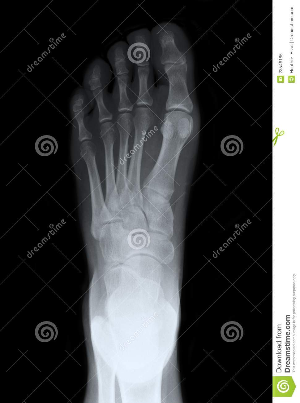 Left foot looking down on top of the foot, for medical diagnosis.