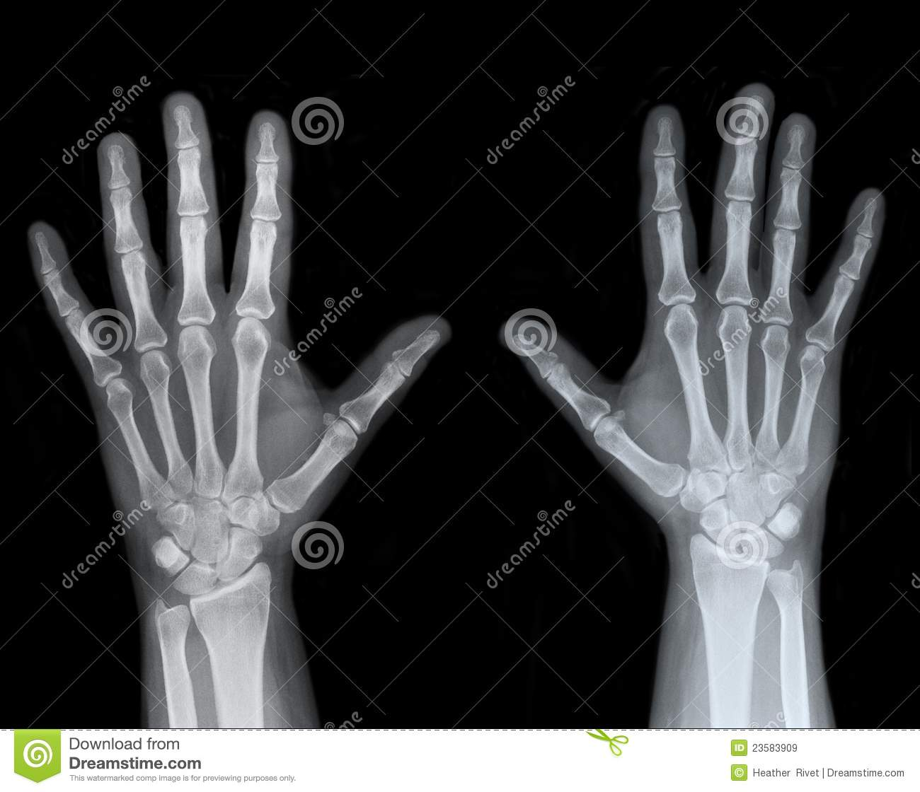 Left And Right Hand X Ray Stock Image Image Of Joints 23583909