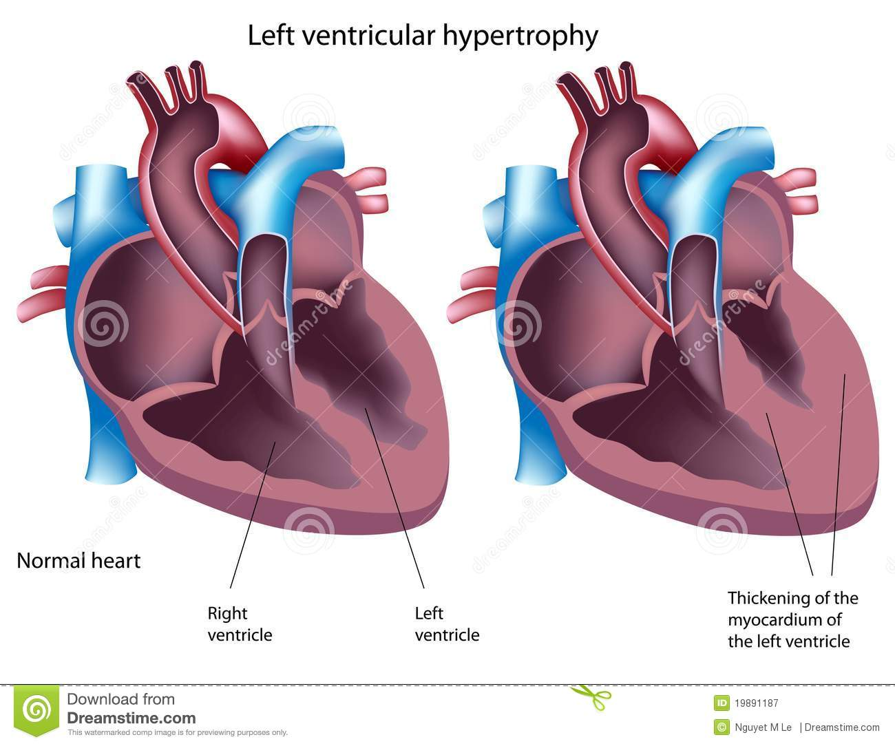 Royalty Free Stock Photography Left Ventricular Hypertrophy Image19891187