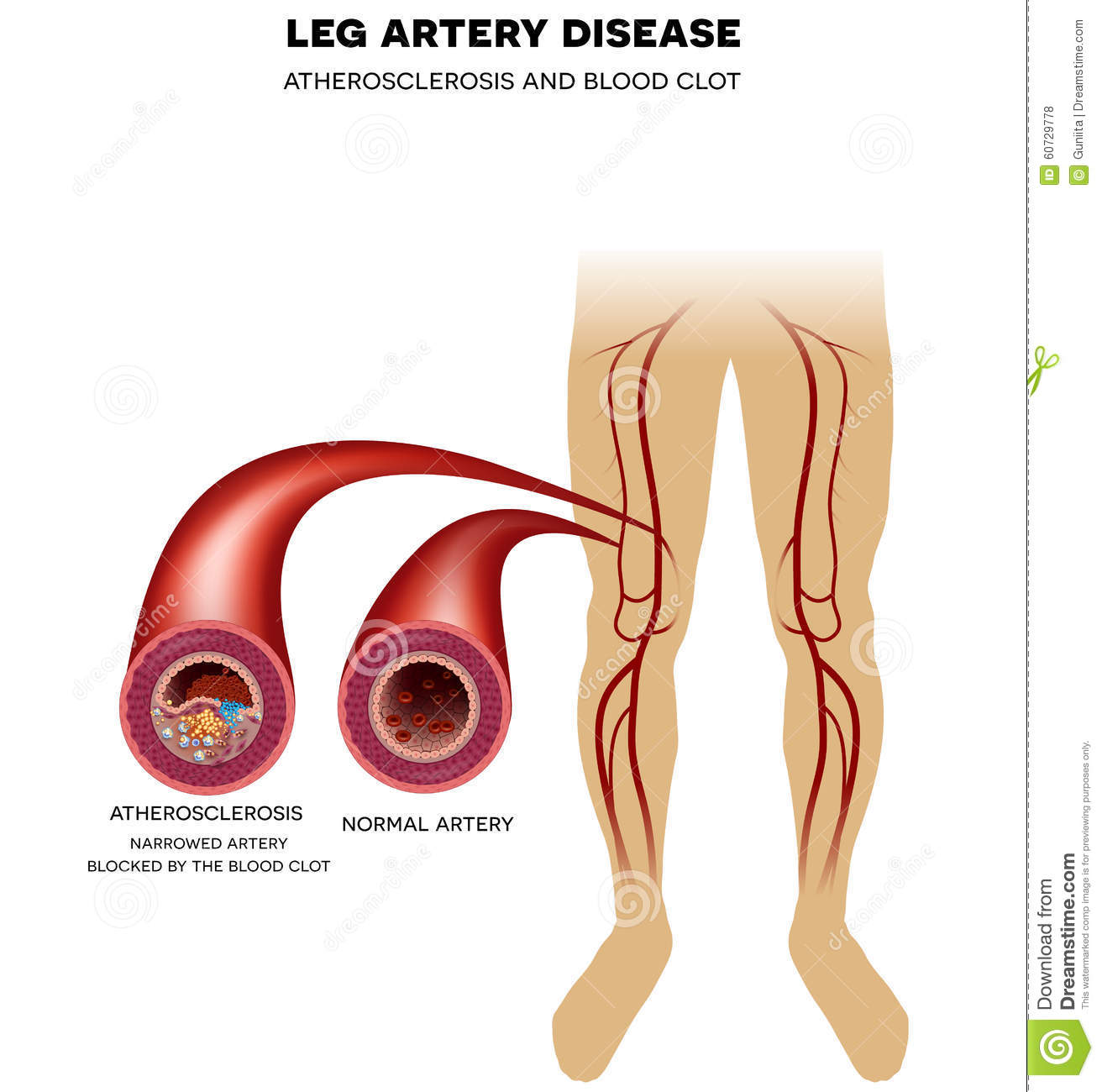 Leg Artery Disease, Atherosclerosis Stock Vector - Illustration of ...