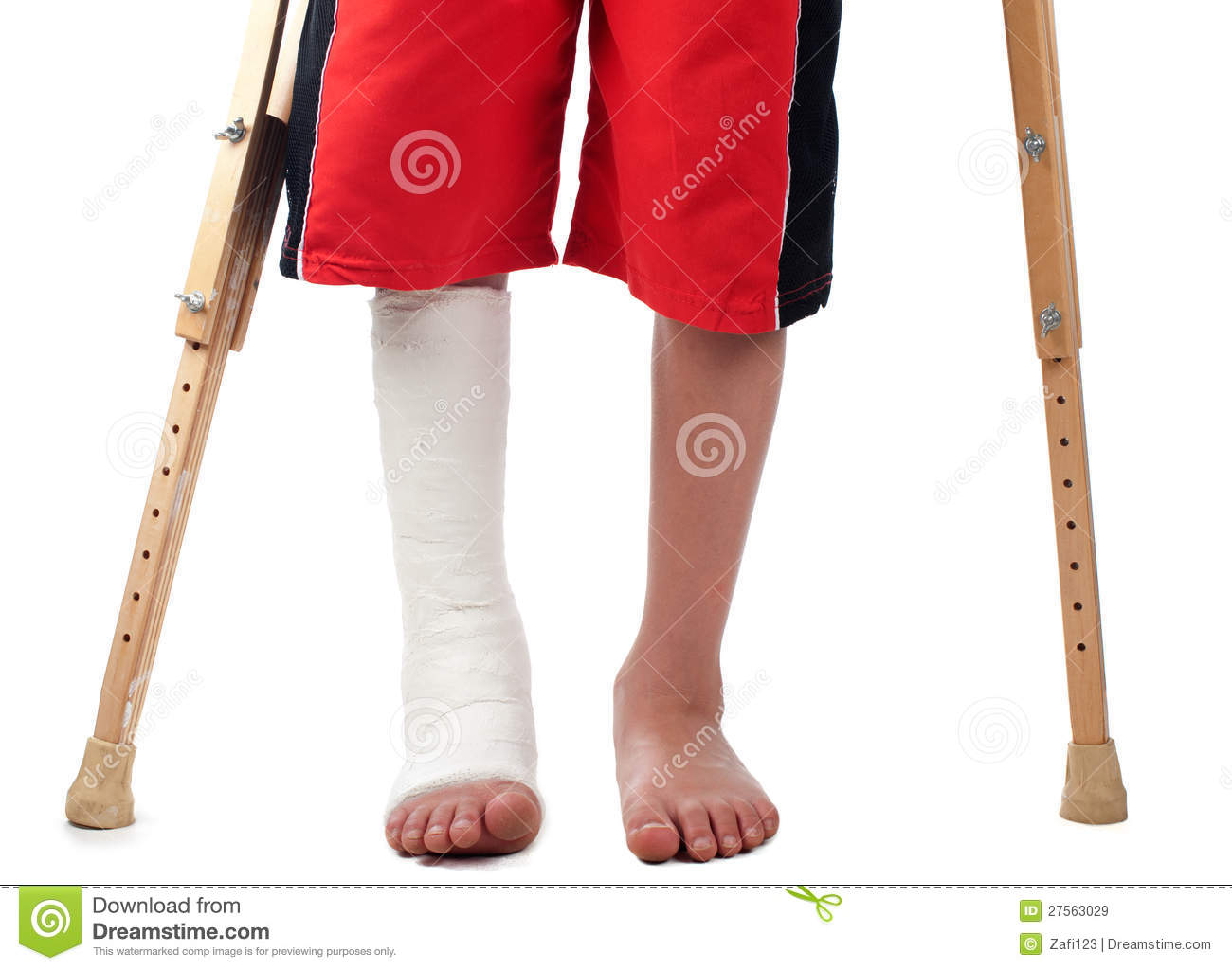 Leg Fracture Stock Image Image Of Crutch Fracture Gips 27563029