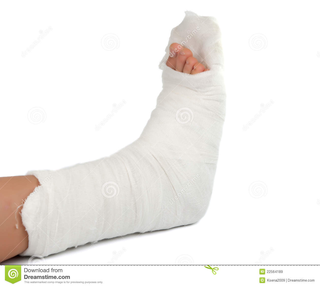 Leg In A Plaster Cast Stock Image. Image Of Achilles