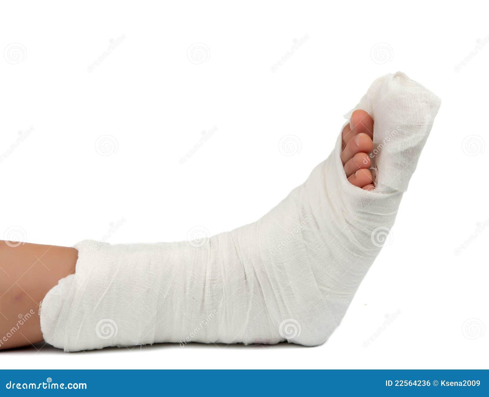 Leg in a plaster cast