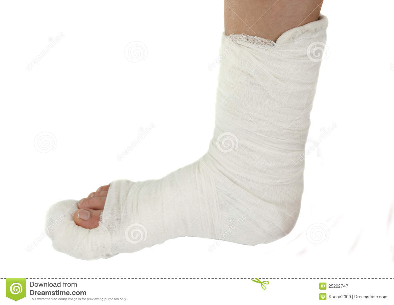 Leg In A Plaster Cast Stock Image Image Of Ankle Fracture 25202747