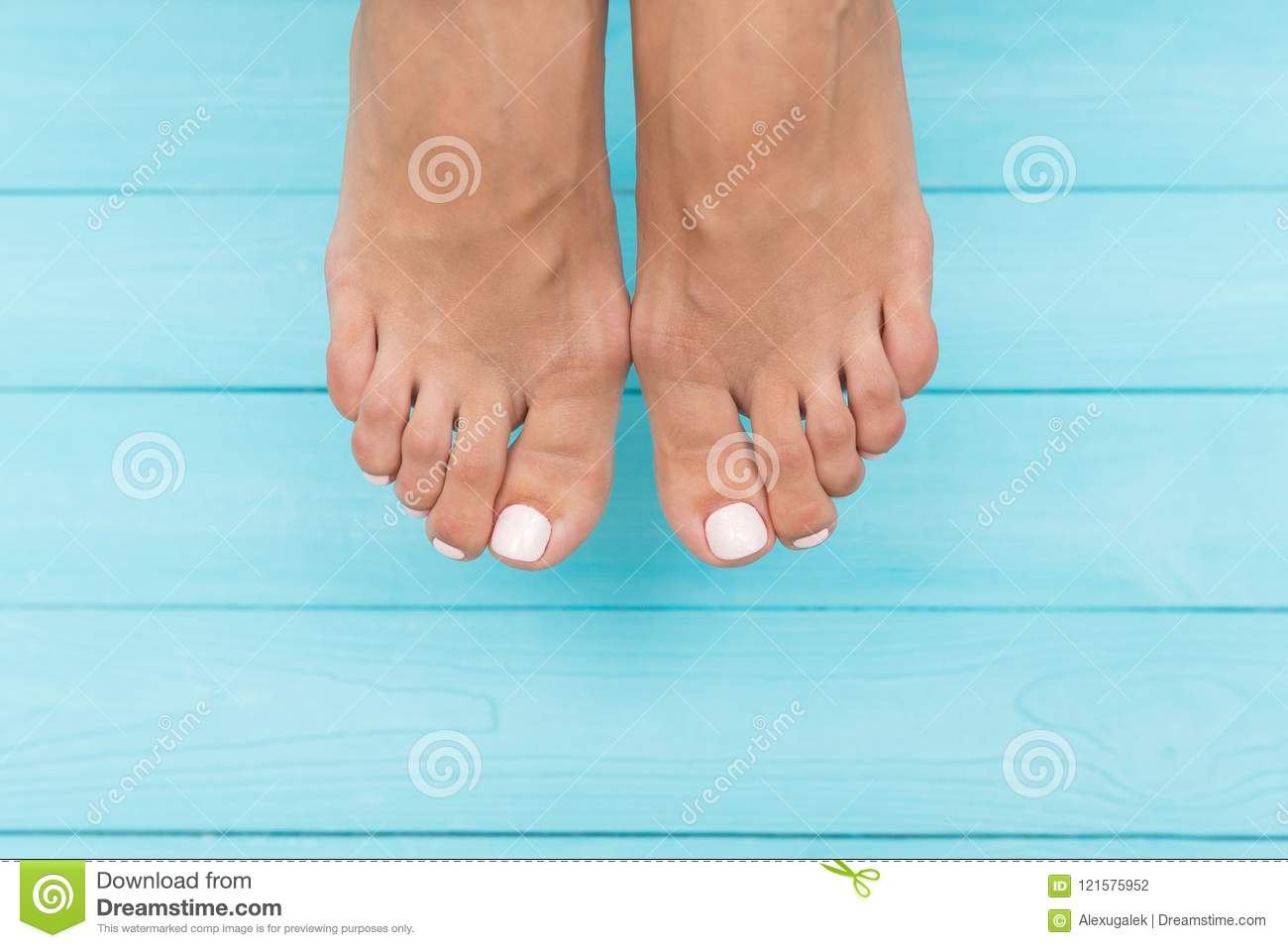 Legs With Varicose Veins Stock Photo Image Of Woman 121575952