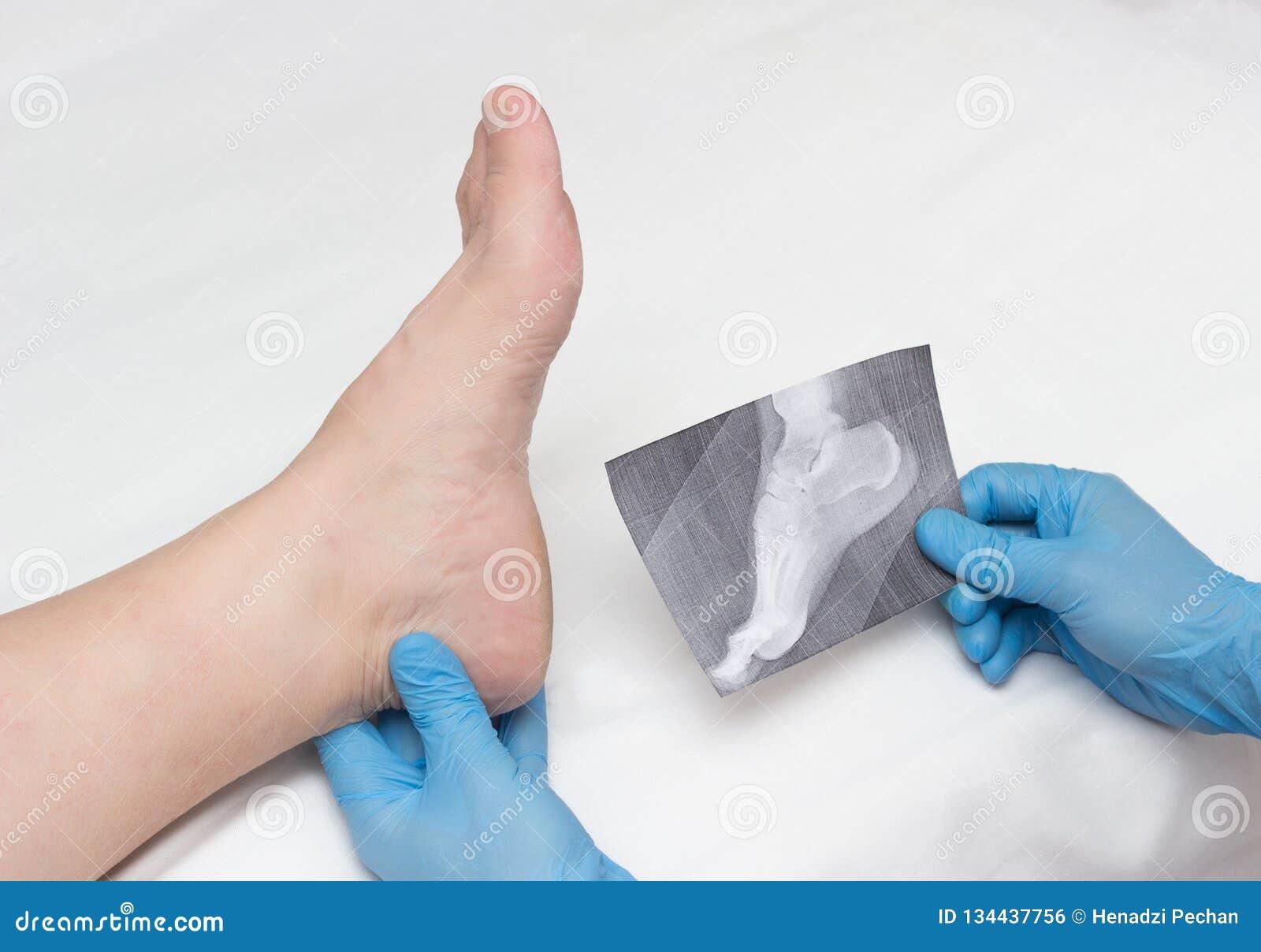 Lekarka w medycznych rękawiczkach trzyma promieniowanie rentgenowskie stopa i egzamininuje bolesną nogę z piętową ostrogą na kobi