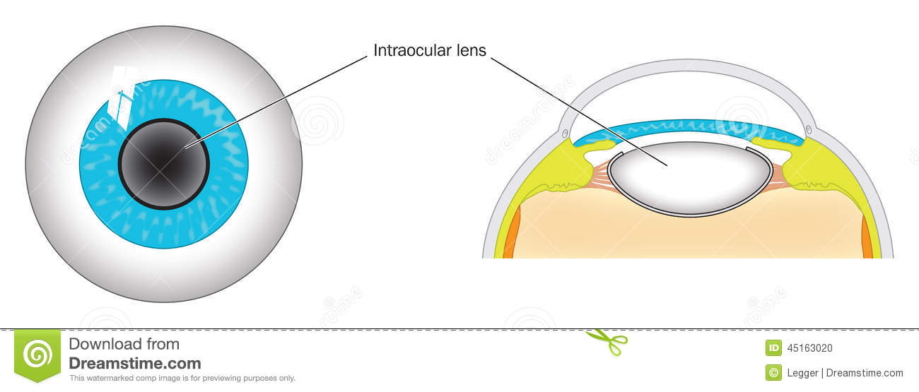 Lens of eye stock vector. Illustration of site, anatomy - 45163020