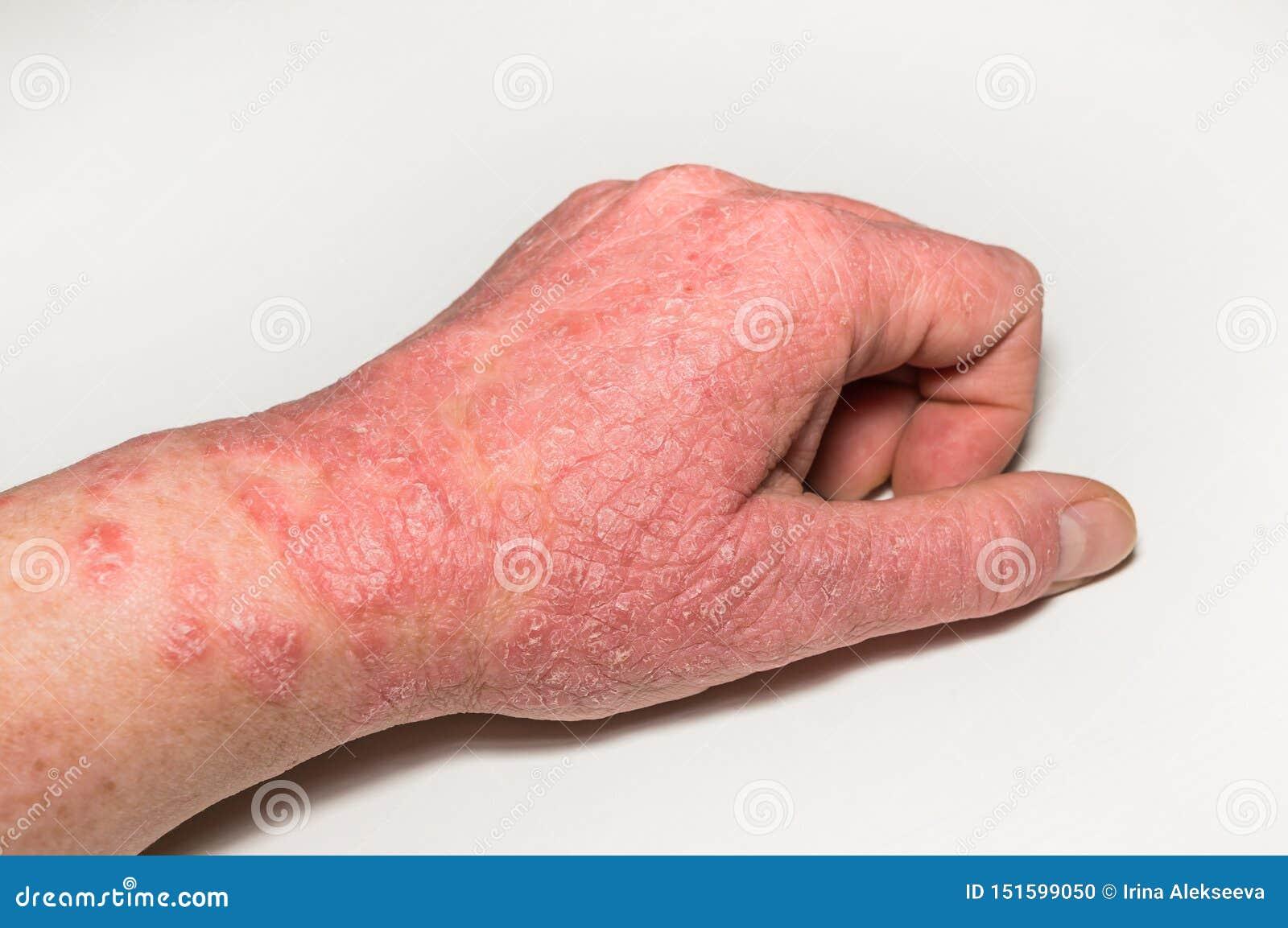 dermatite 2 anni)