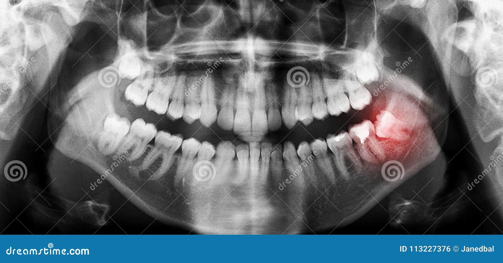 Les dents dentaires radiographient le balayage panoramique avec la dent de sagesse de travers