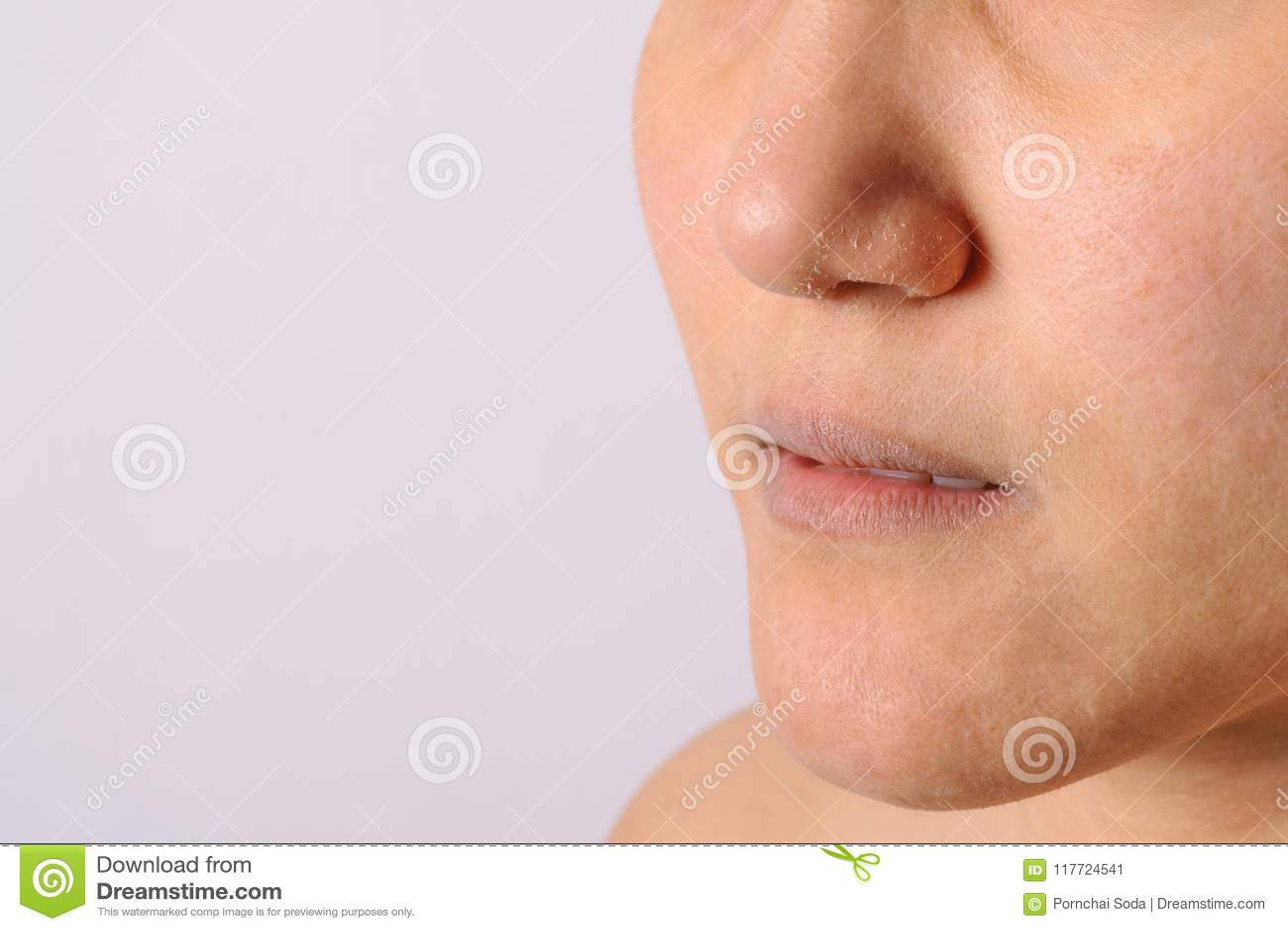eczemas allergiques