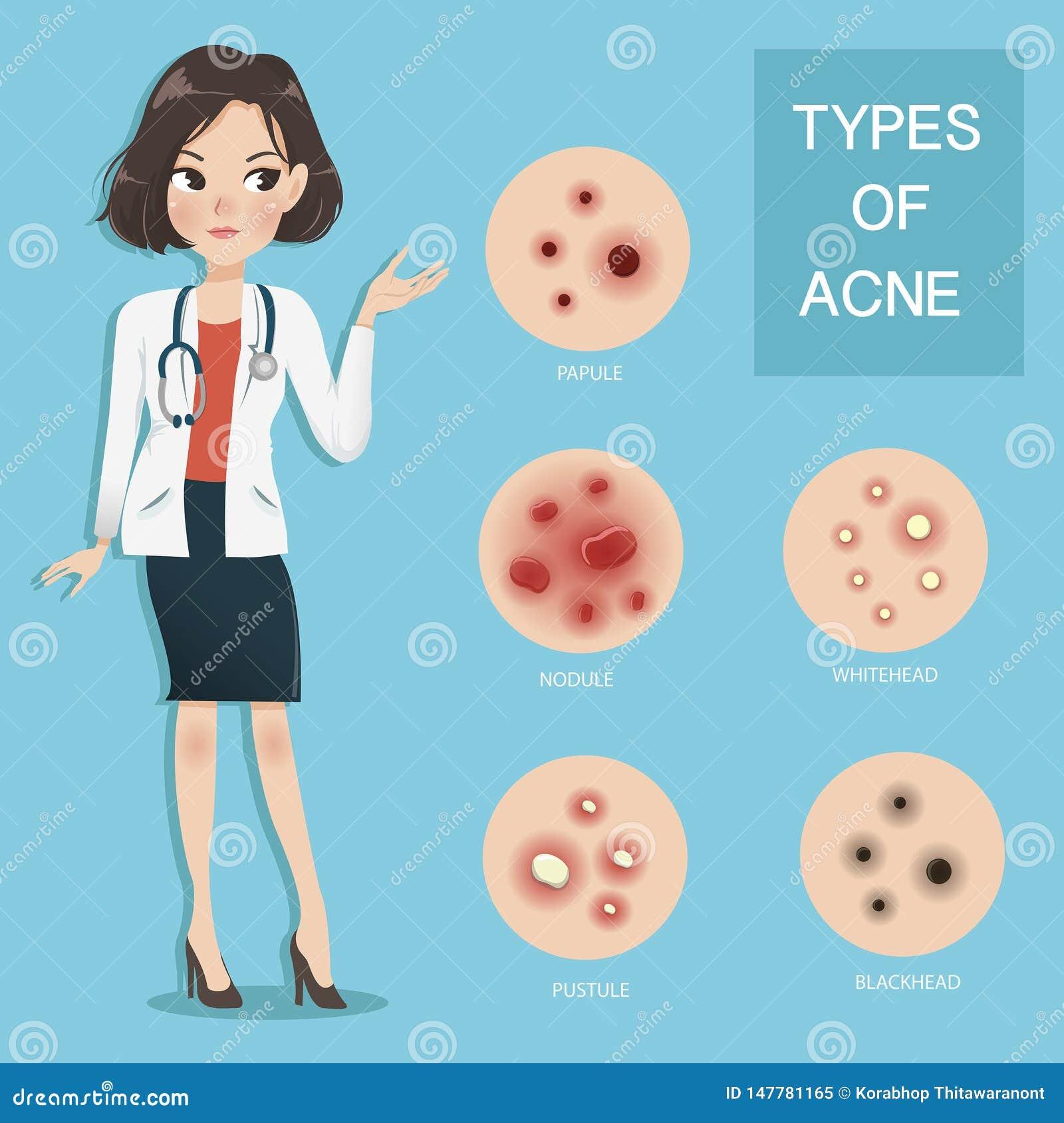 Les médecins recommandent le type d acné