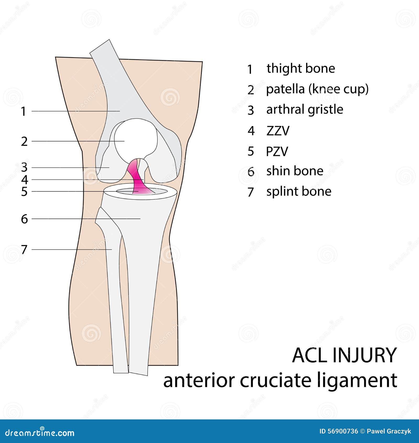 Lesión de rodilla del Acl ilustración del vector. Ilustración de ...