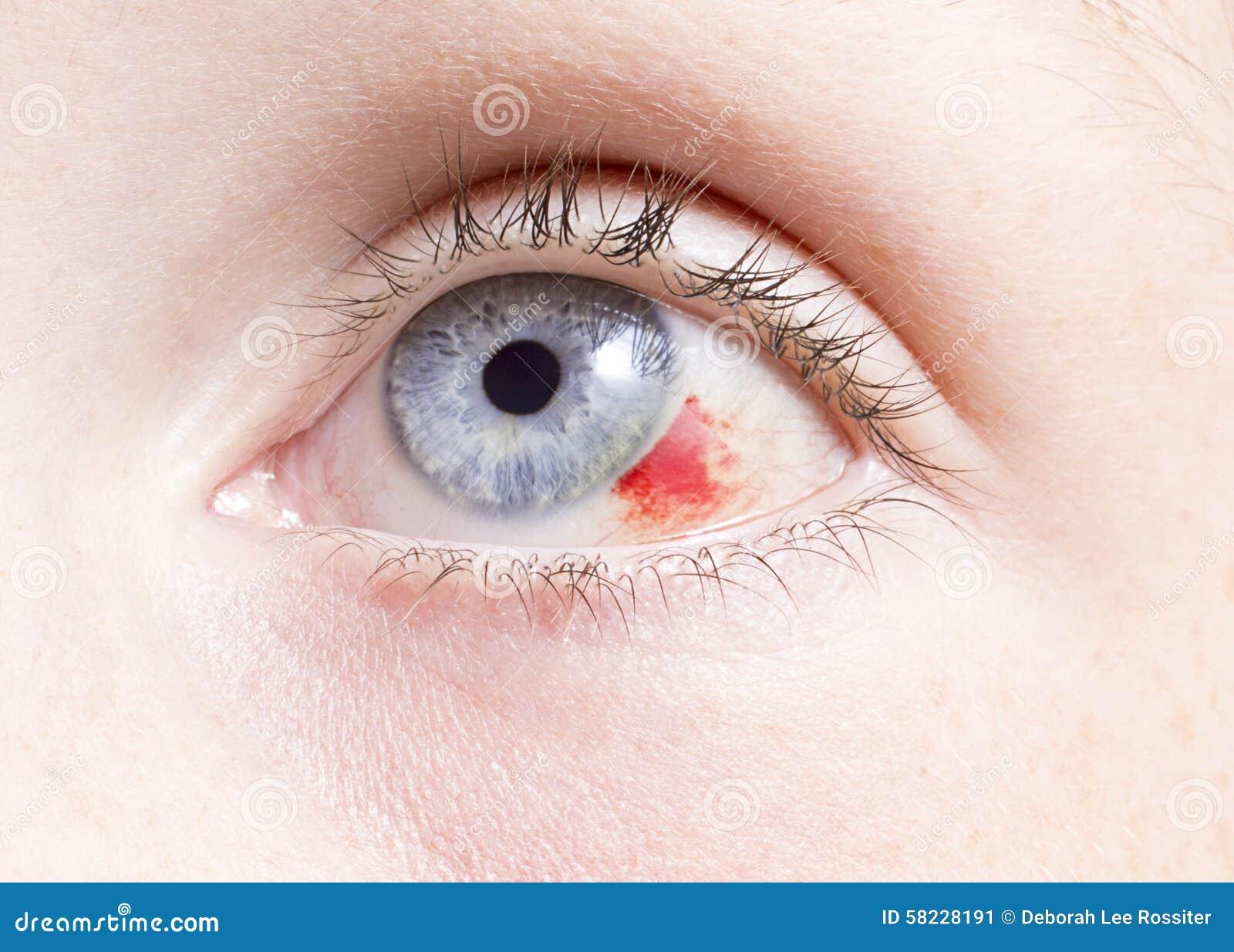 Lesione agli occhi