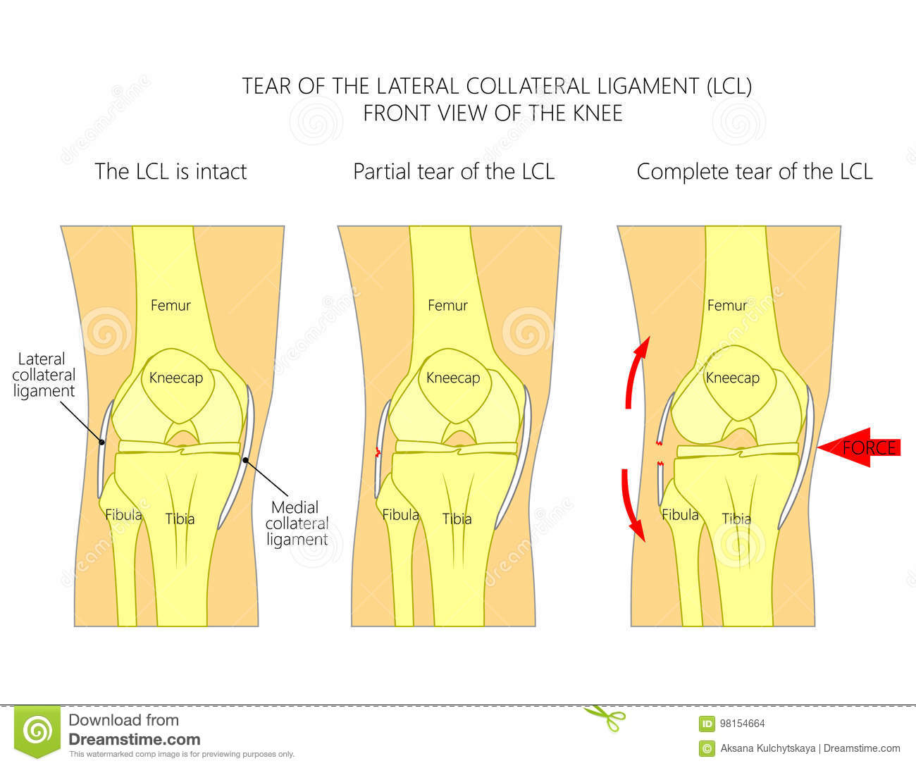 Ligaments Of The Kneetear Of The Lateral Collateral Ligament Stock