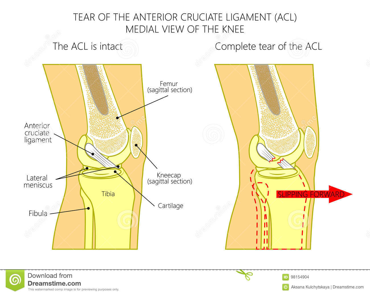 Ligaments Of The Kneetorn Anterior Cruciate Ligament Stock Vector
