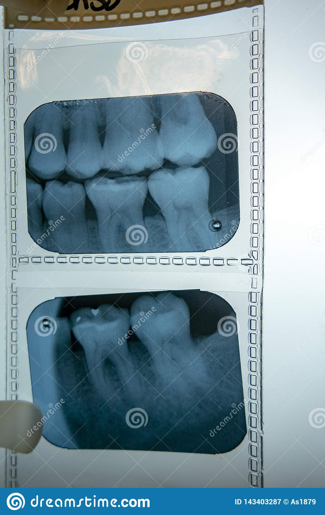 Dentist left side of human first and second molars teeth x-ray scan on a light box