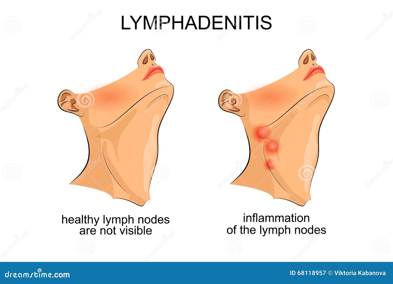 Linfadenitis Inflamación De Los Ganglios Linfáticos Imagen de ...