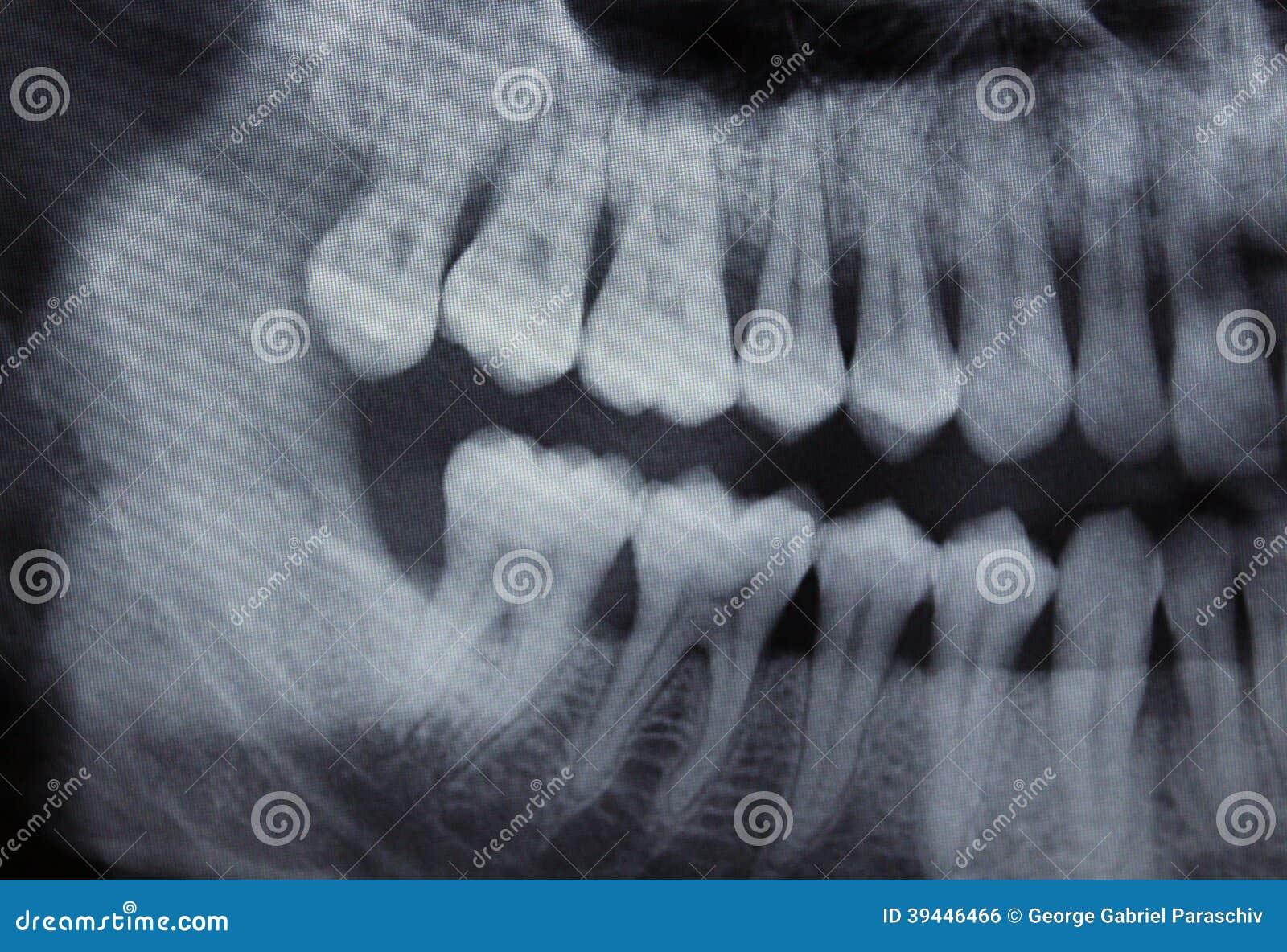 Linke Hälfte des zahnmedizinischen Röntgenstrahls