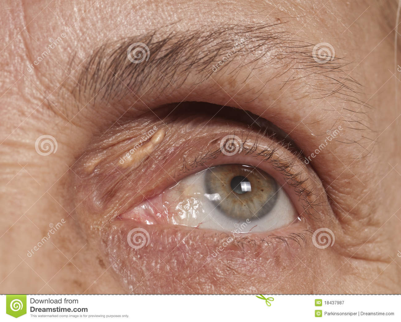 Herpes...Of the Eye!