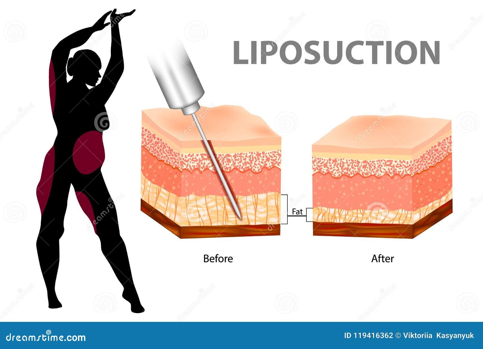 Liposuction Or Lipo  Stock Vector  Illustration Of Deep