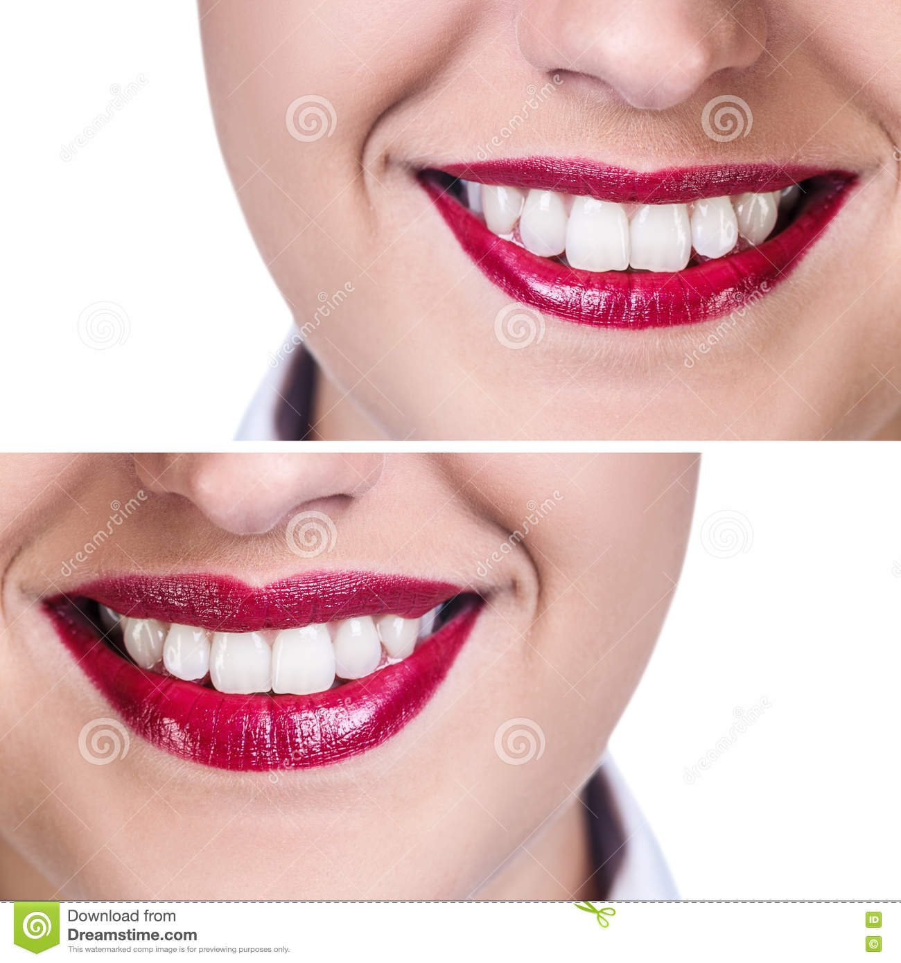 Lips Before And After Filler Injections Stock Image - Image