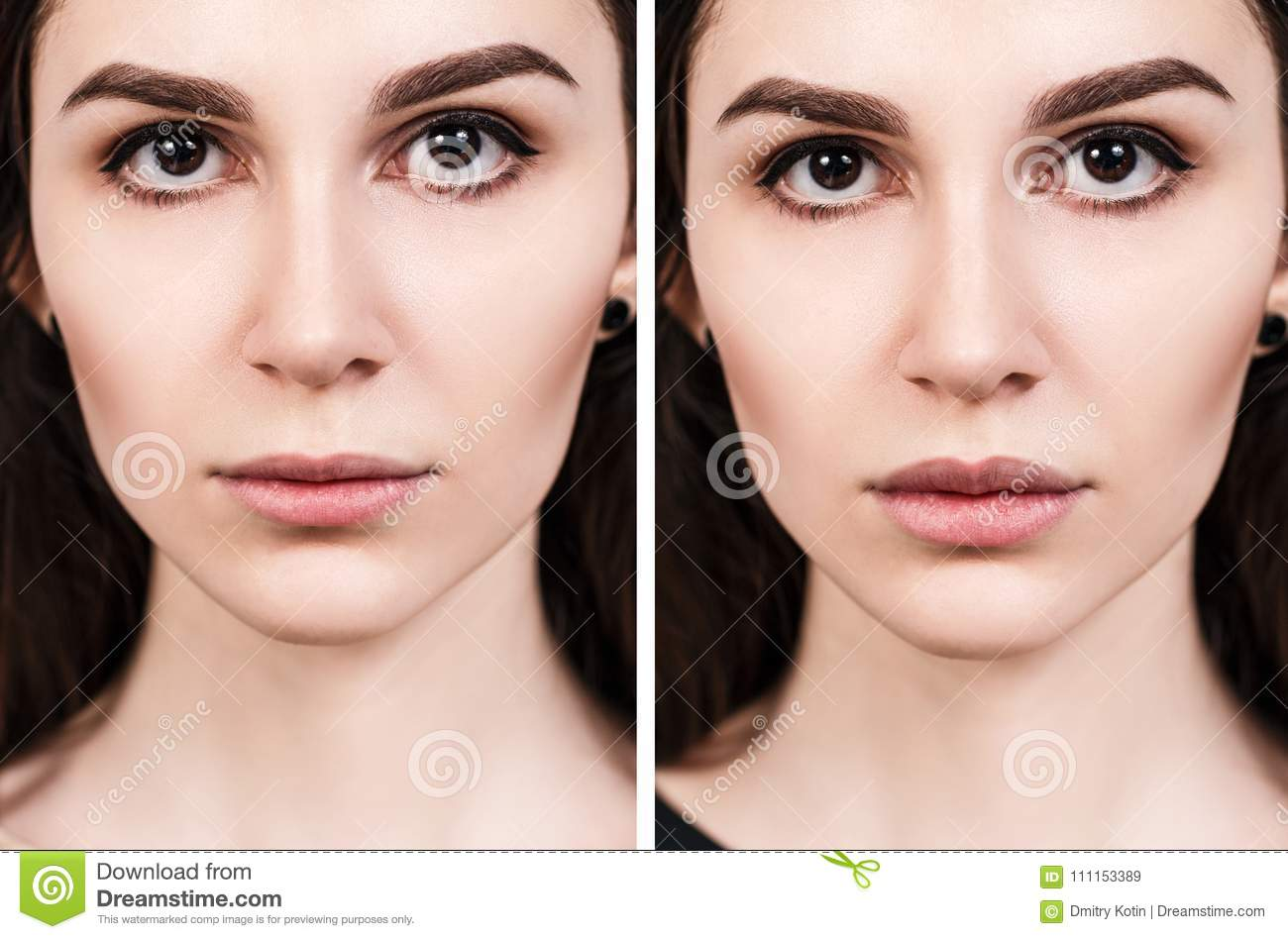 Lips Of Young Woman Before And After Augmentation Stock