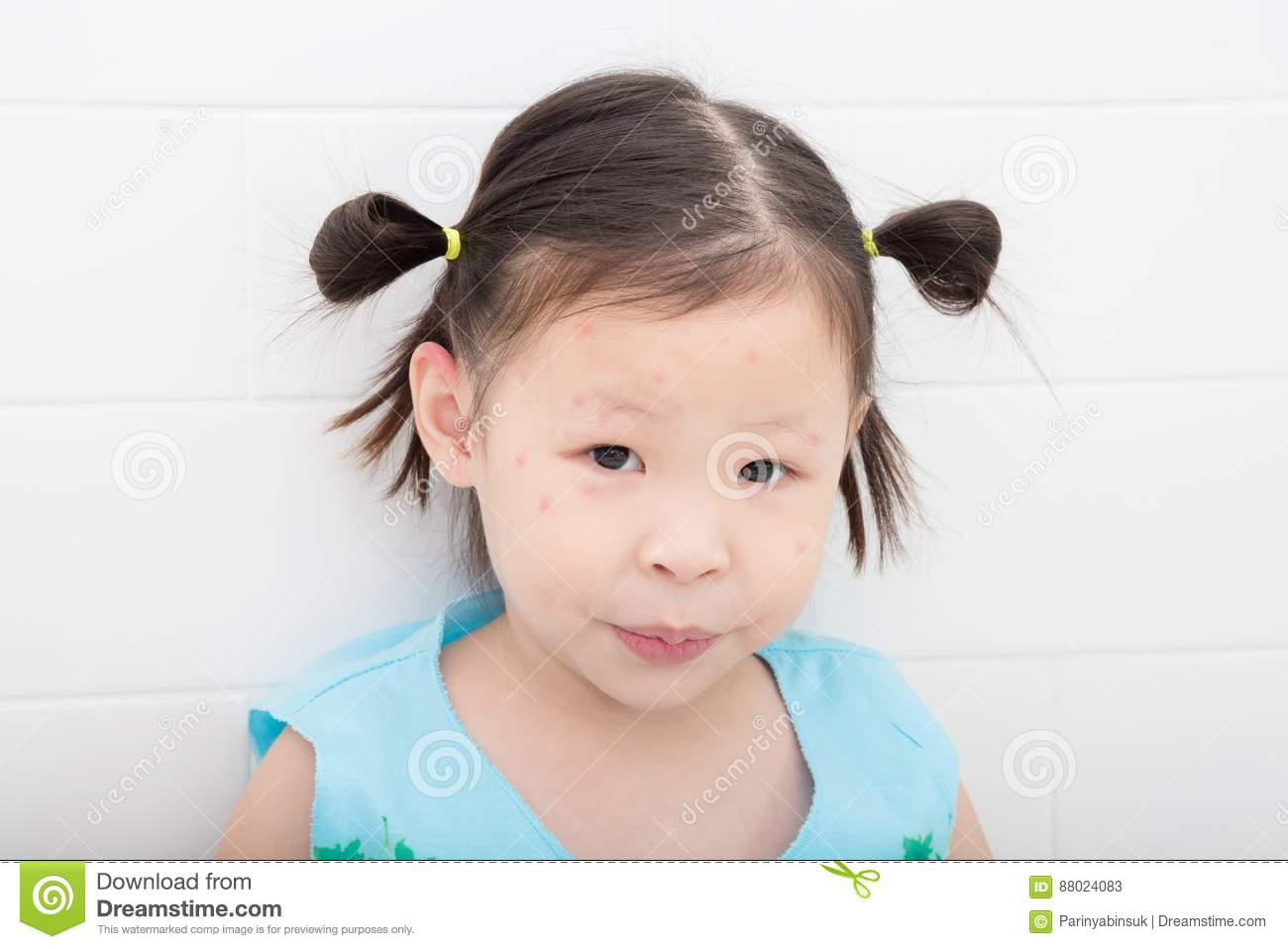 Girl With Red Spot From Mosquito Bite On Face Stock Image Image Of
