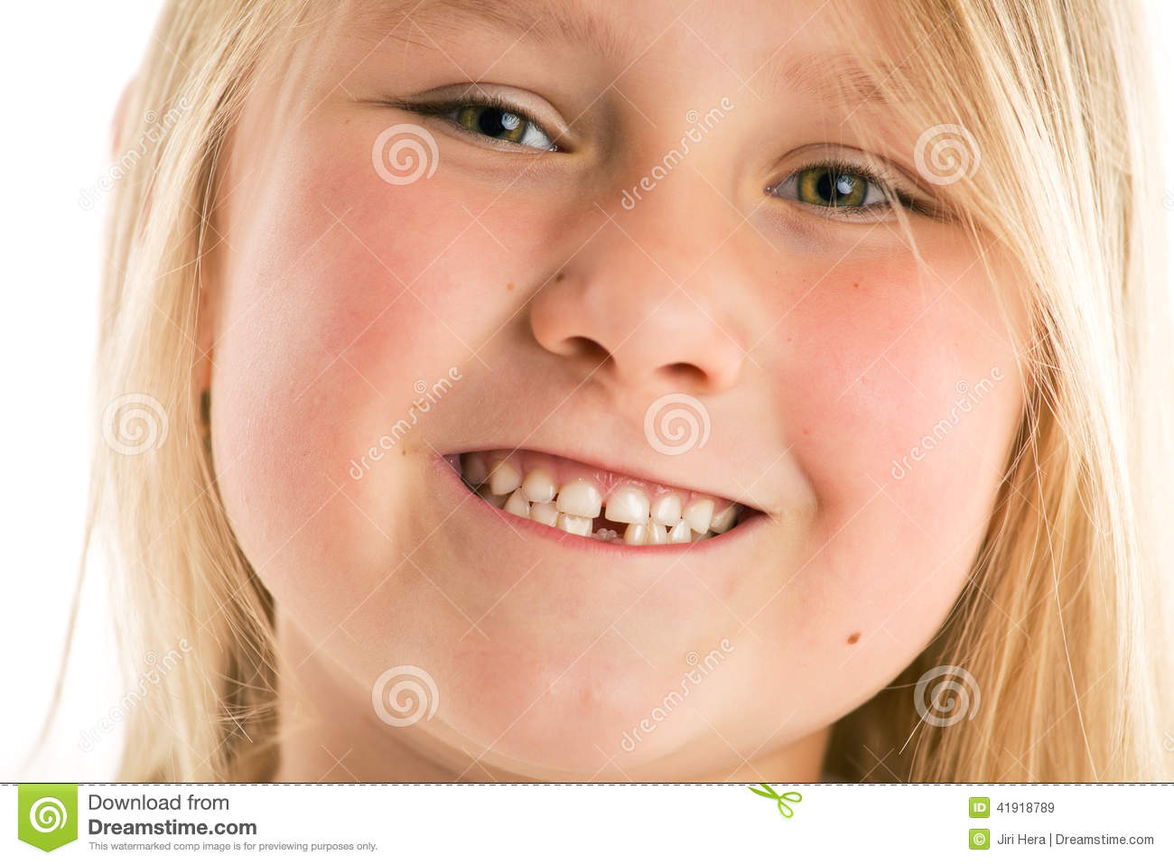 Girl Missing Teeth Open Mouth Vector Illustration