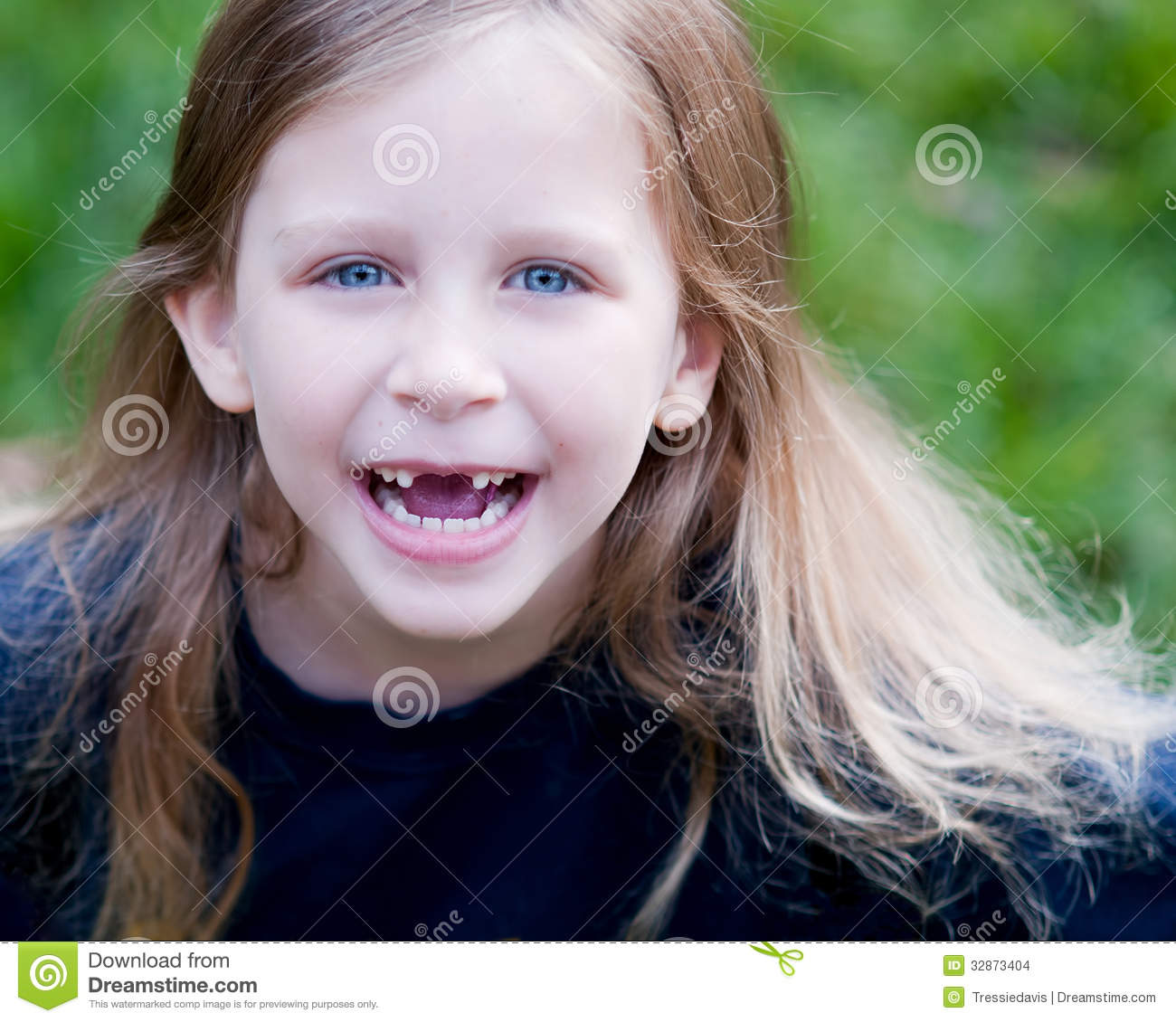 Little Girl Missing Two Front Teeth Stock Images - Image ...