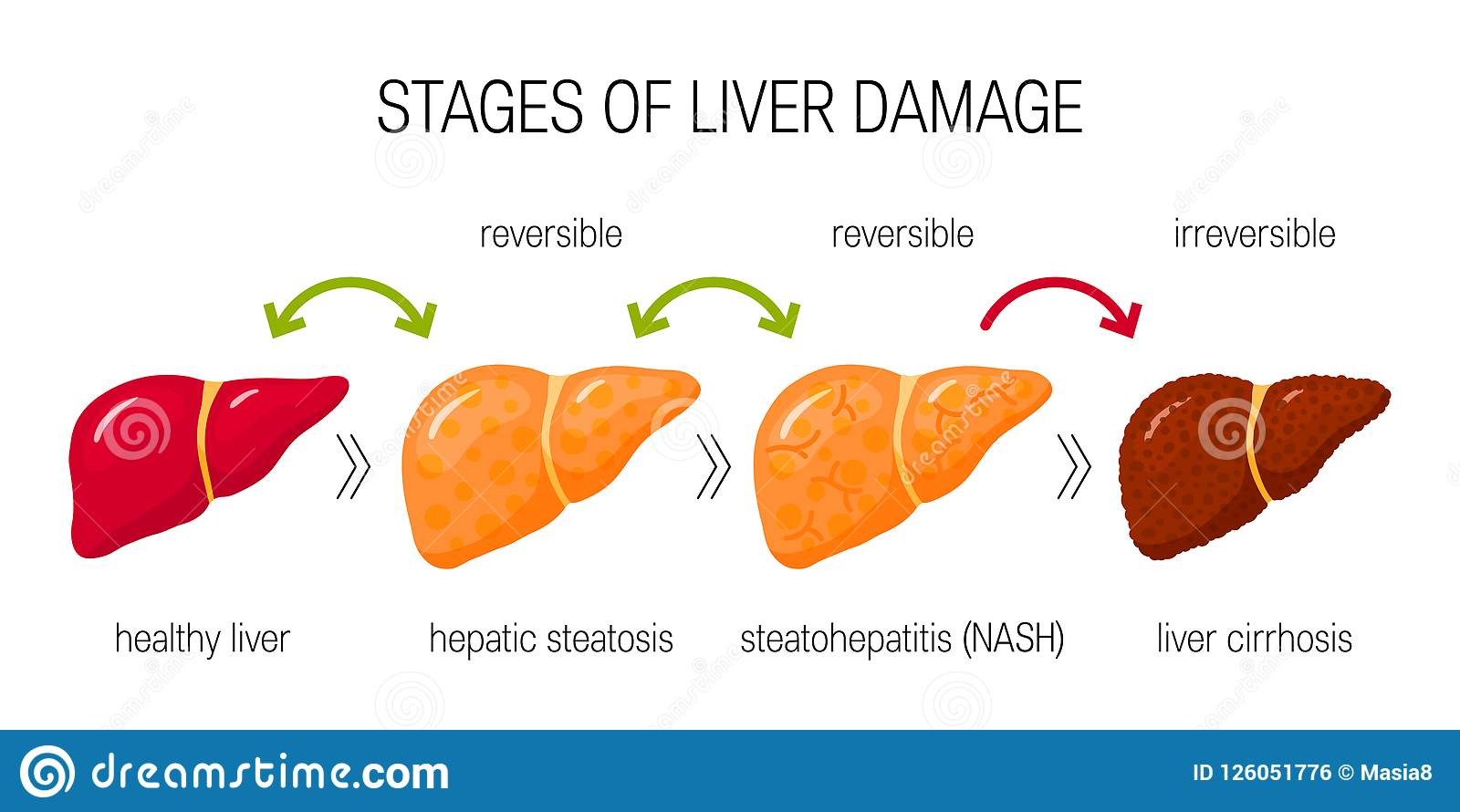 liver damage vector concept stock illustration illustration of Digestive System Diagram