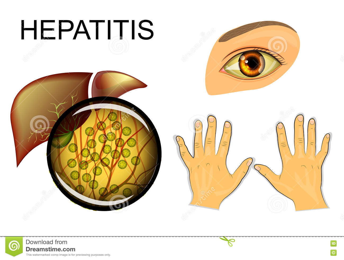 liver disease hepatitis c essay In this essay we will discuss about hepatitis c virus (hcv)  chronic infection,  after many years can lead to cirrhosis, liver failure, liver cancer and death.