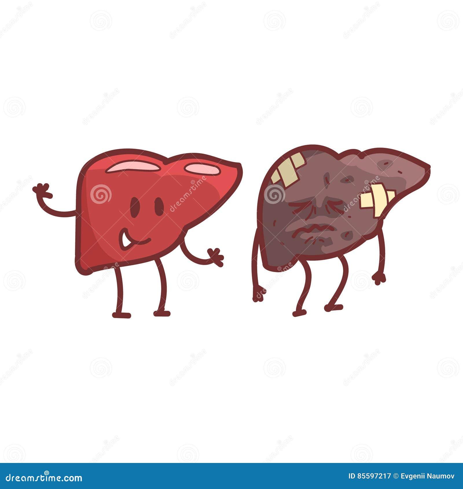 Liver Human Internal Organ Healthy Vs Unhealthy, Medical Anatomic ...