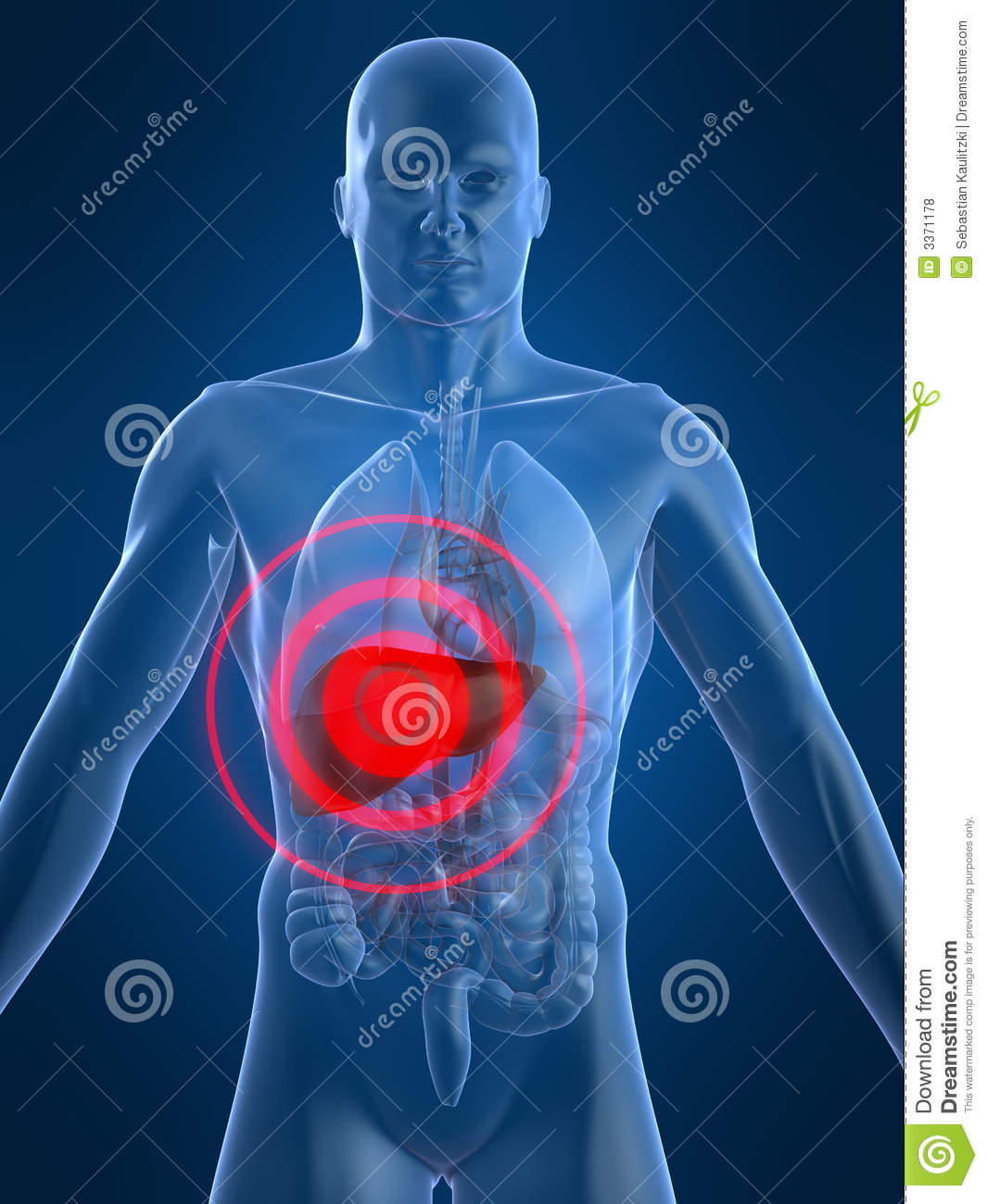 Royalty Free Stock Photos Liver Inflammation Image3371178