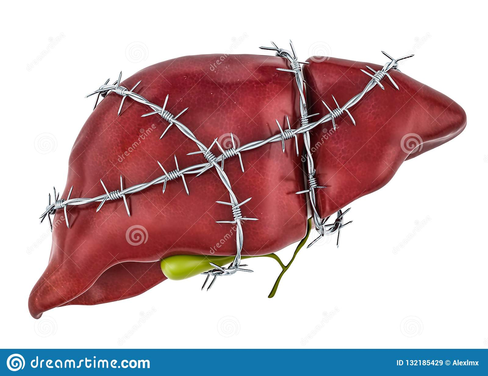 Liver Pain concept. Human liver with barbed wire. 3D rendering