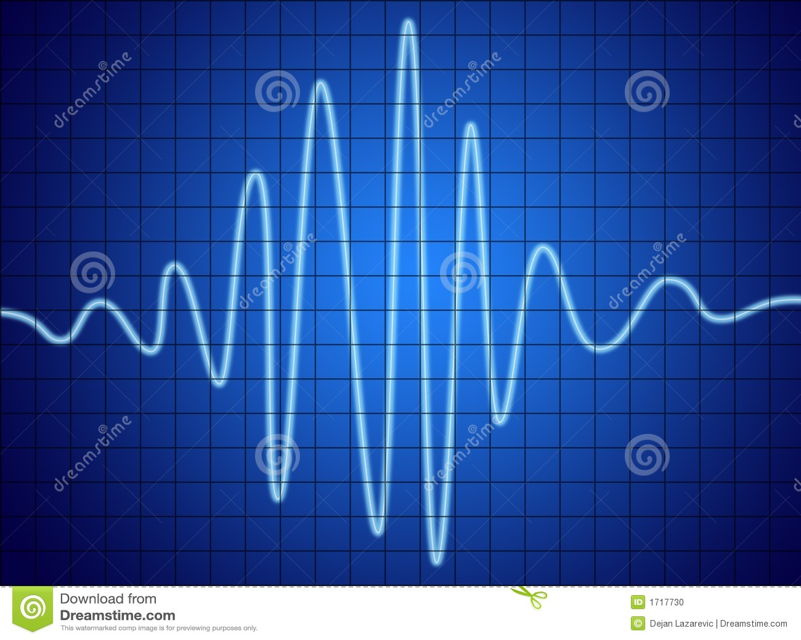 Ljudsignalsignalering