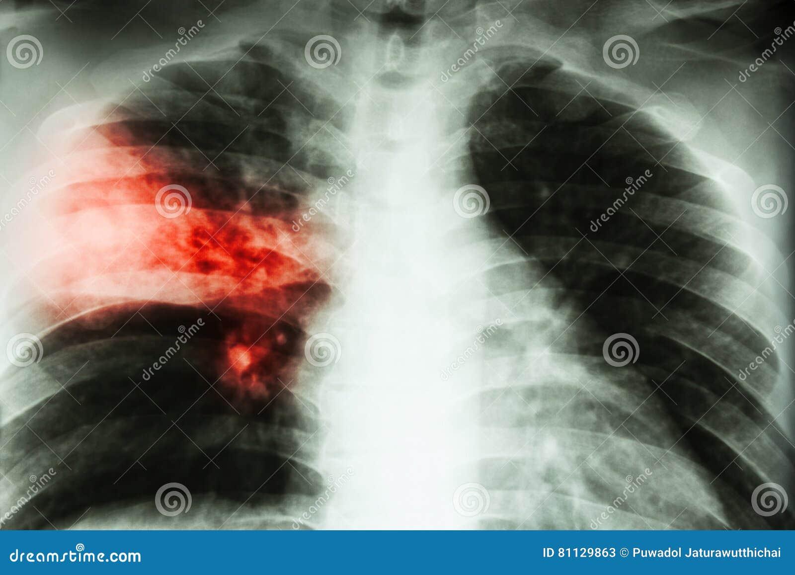 Lobar Pneumonia Film Chest X Ray Show Alveolar Infiltration At