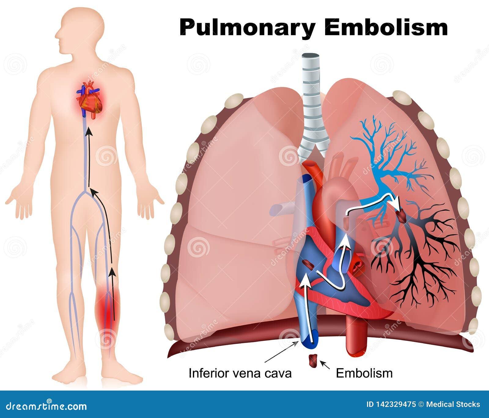 Longembolie medische illustratie met beschrijving op witte achtergrond