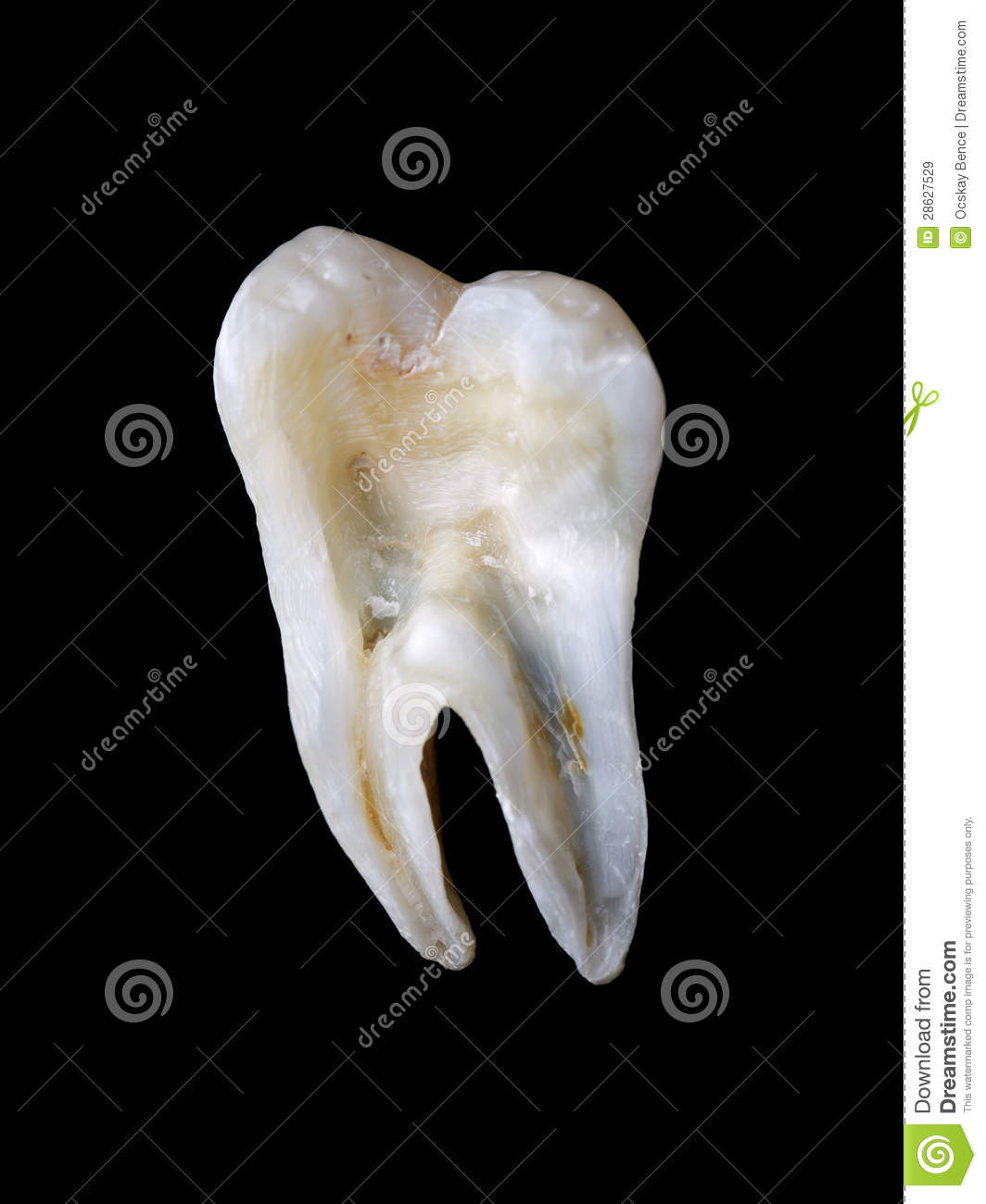 Longitudinal Section From A Human Tooth Stock Image Image Of