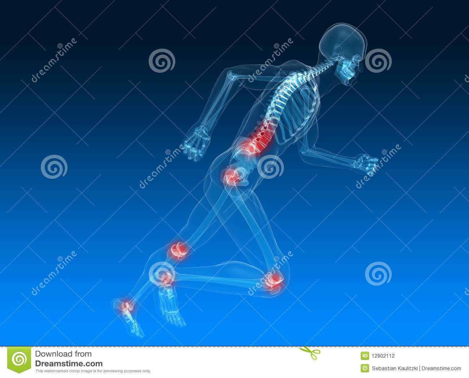 Lopend Skelet Pijnlijke Verbindingen Stock Illustratie