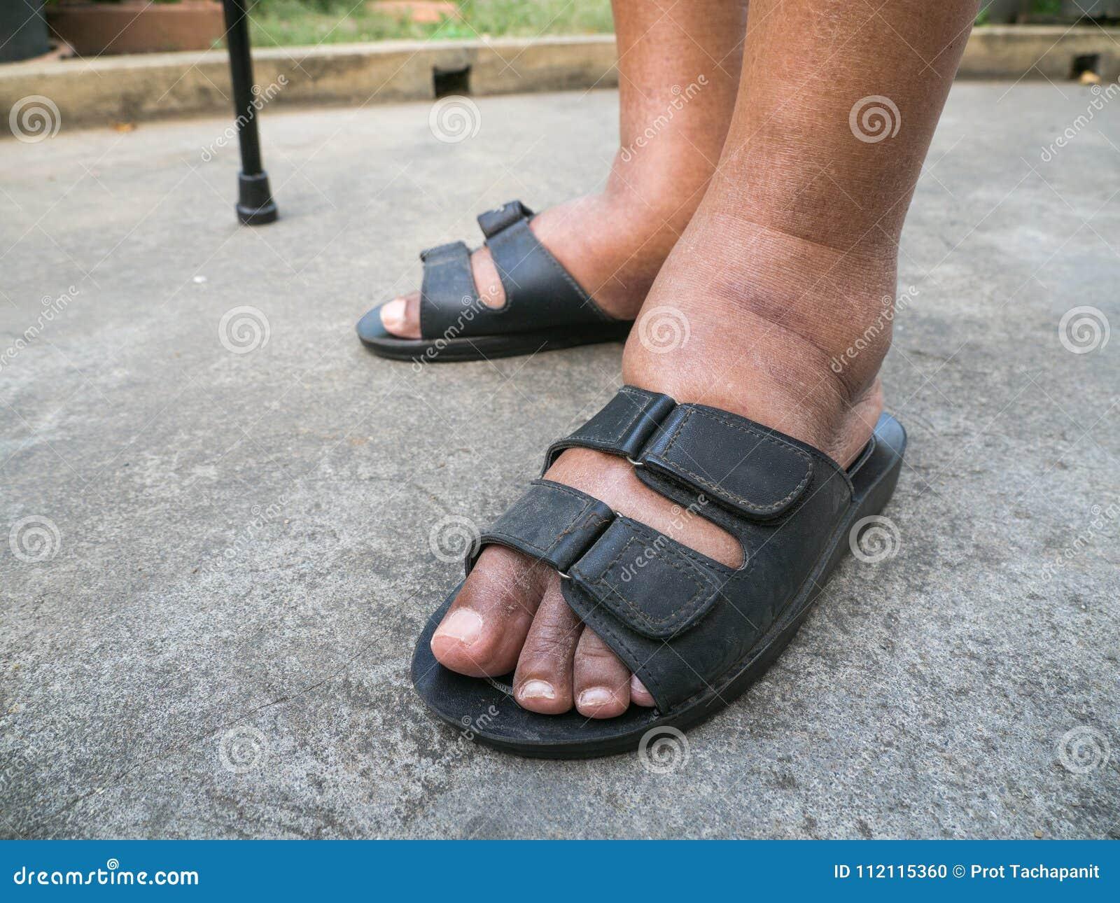 hinchazon de pies en un diabetico