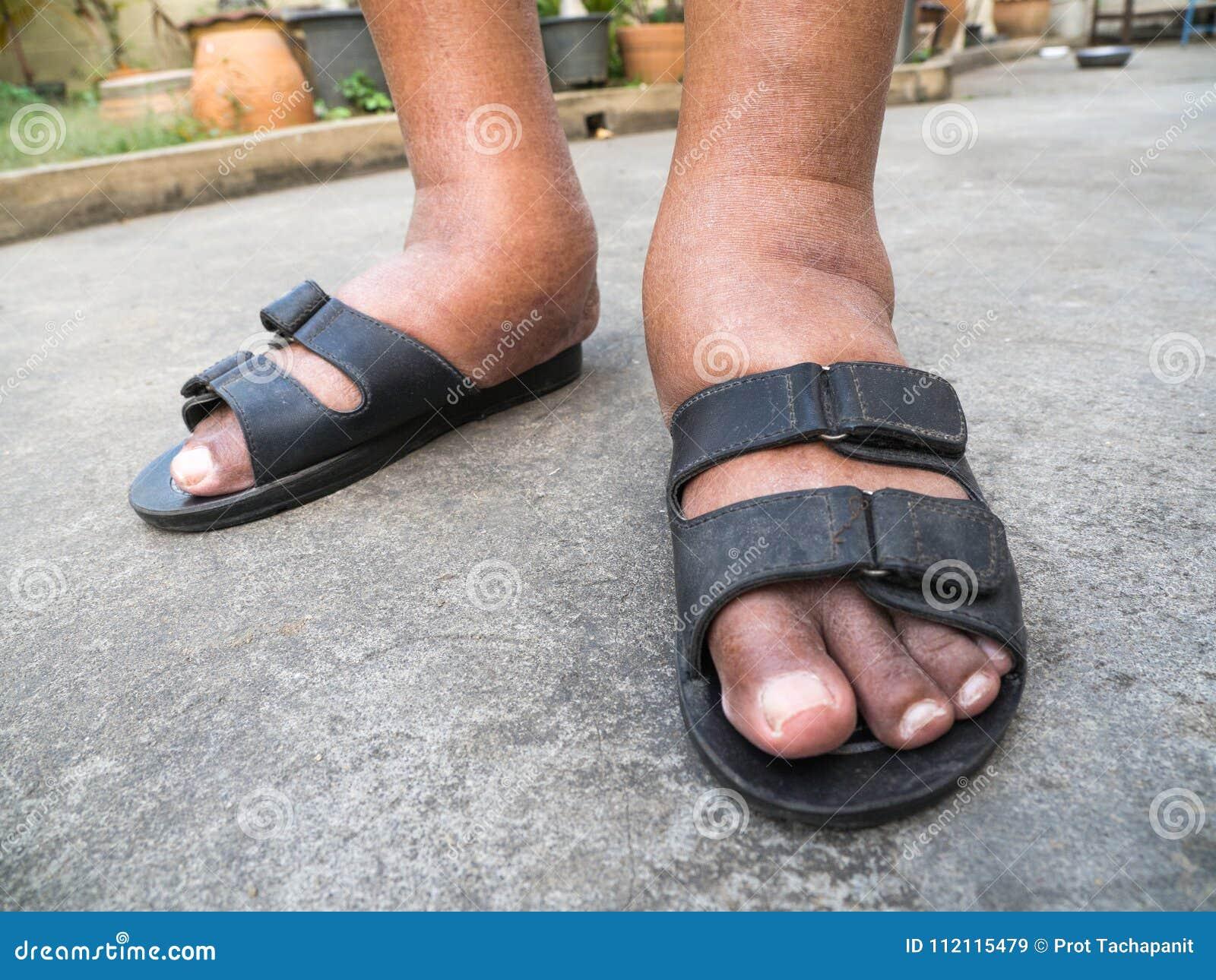 hinchazón de los pies y diabetes
