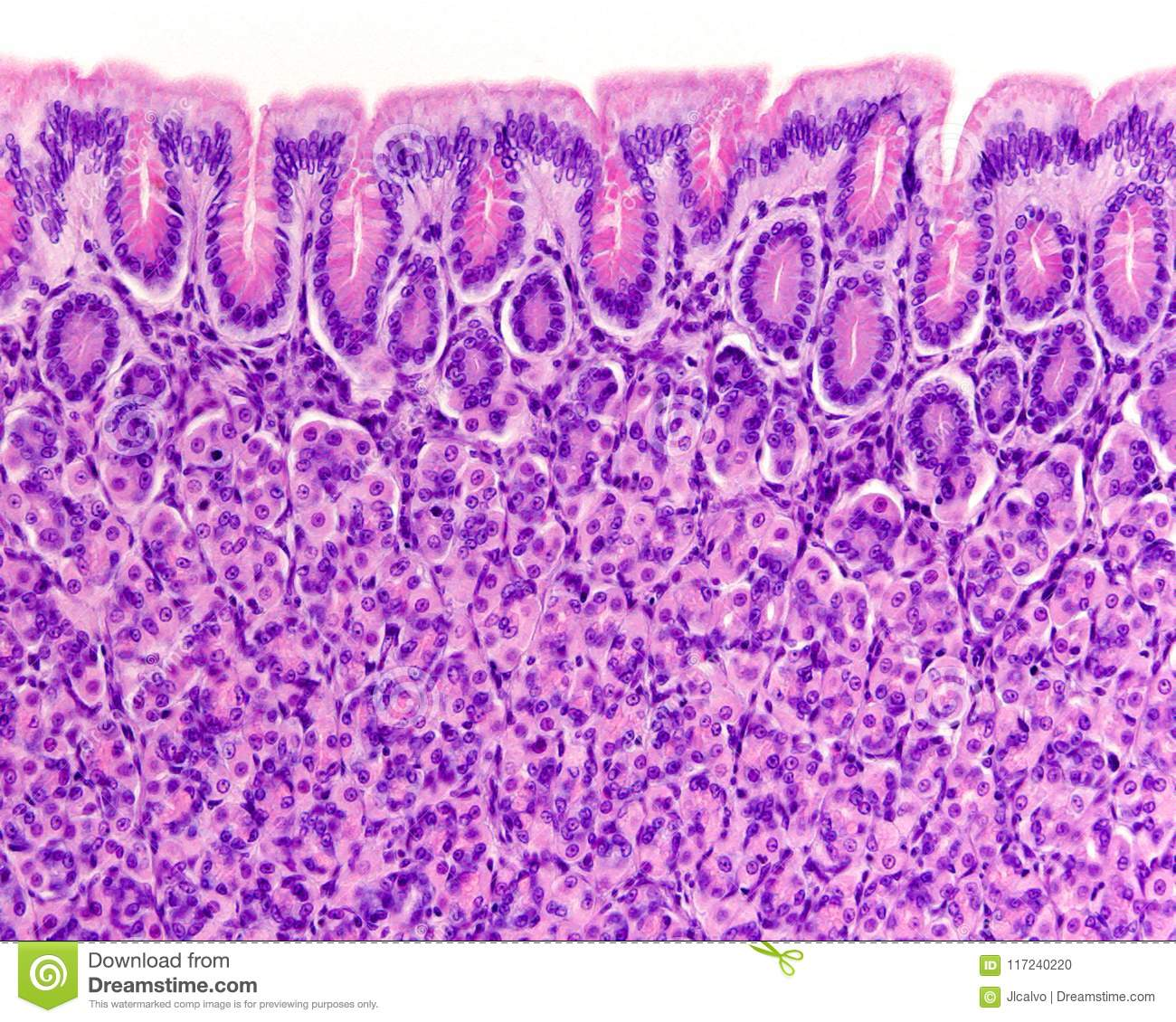 Surface Of Gastric Mucosa Stock Photo Image Of Pits 117240220