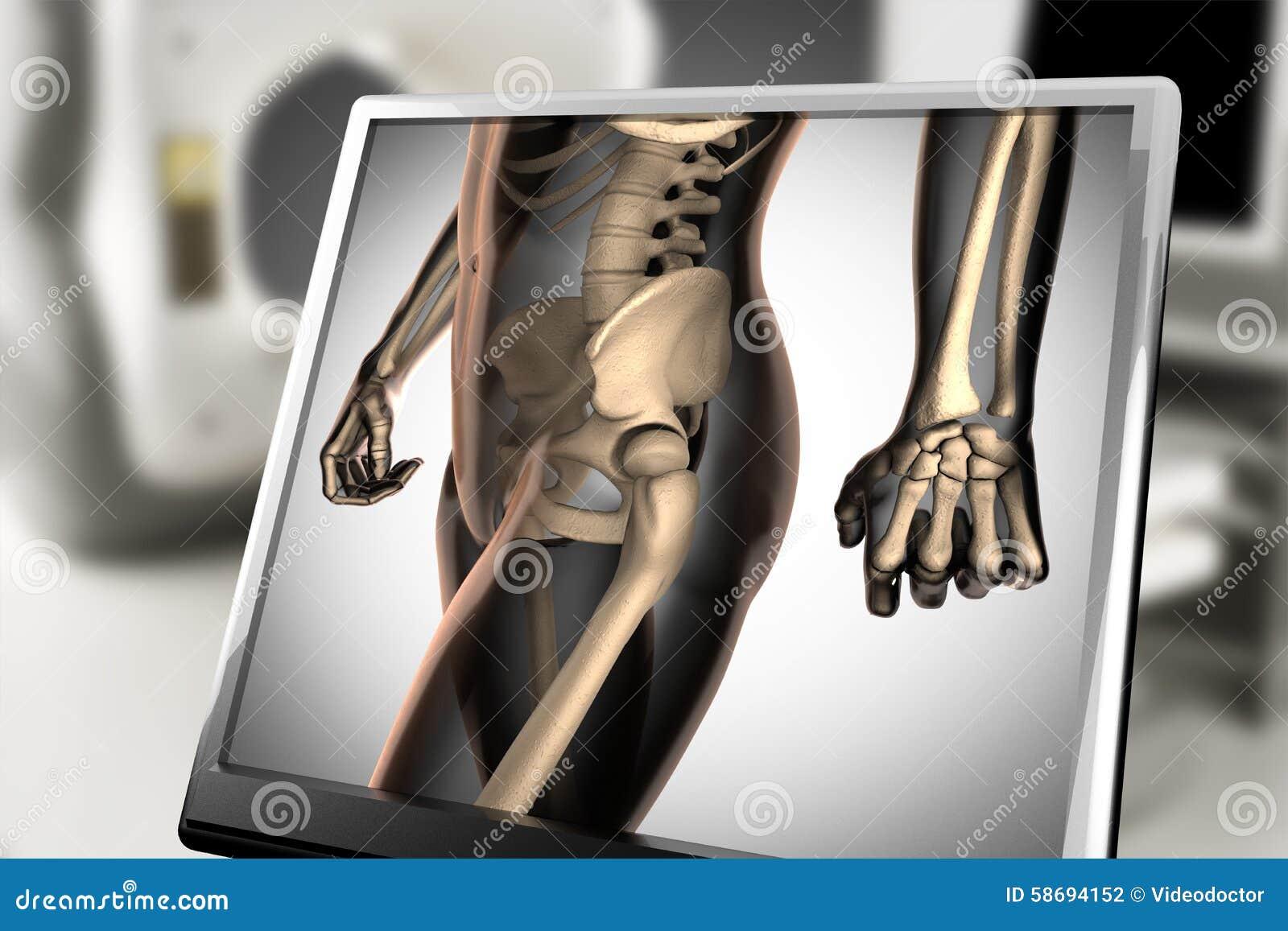 Ludzki kości prześwietlenia obrazu cyfrowego wizerunek