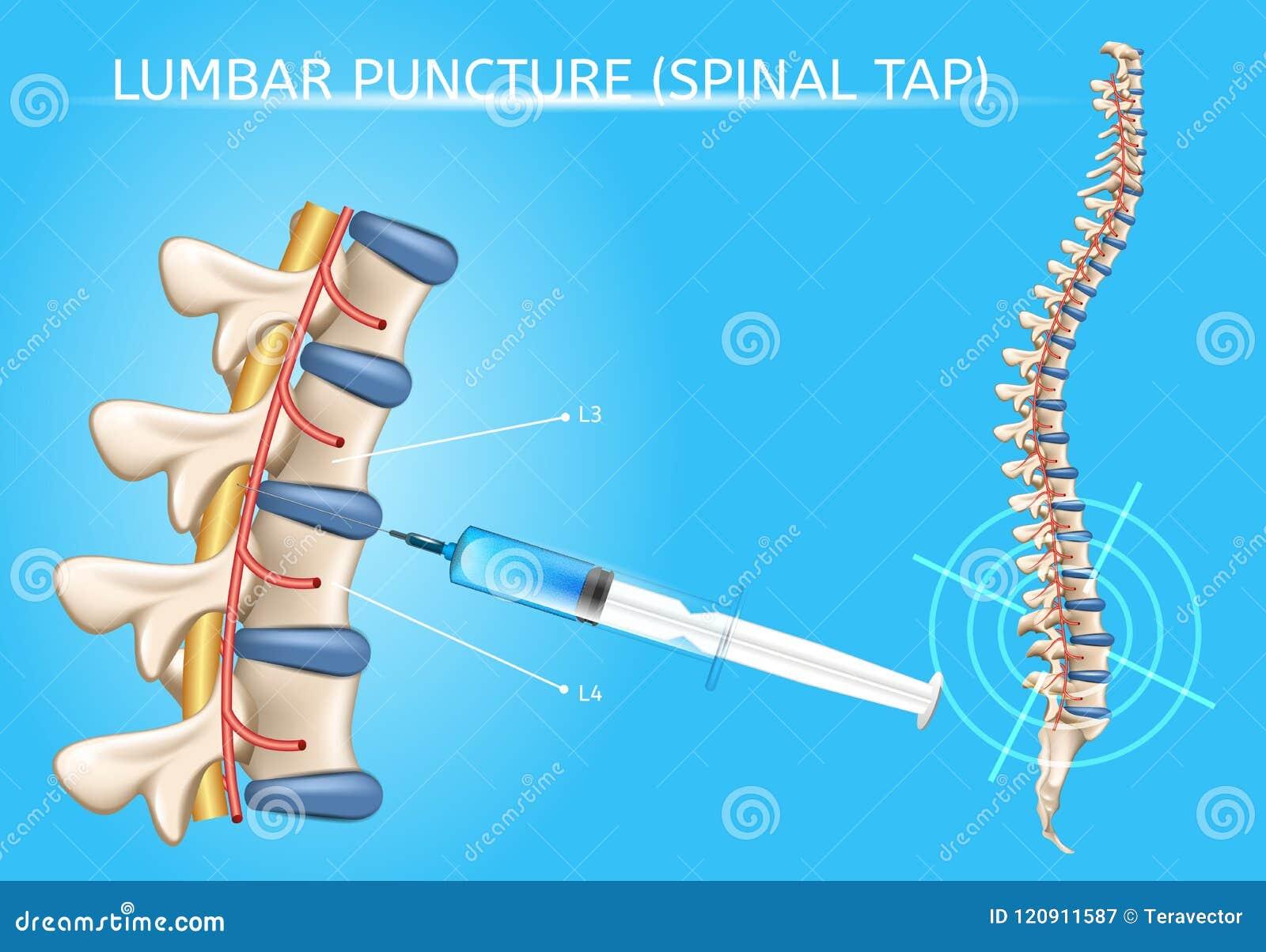 Lumbar Puncture Realistic Vector Medical Scheme Stock Vector ...