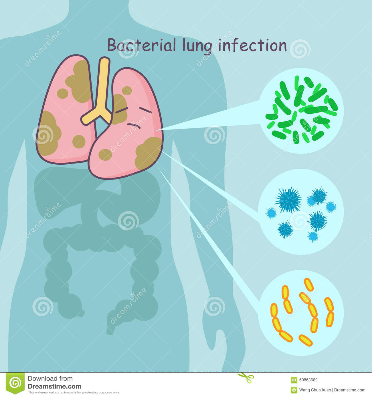 Bacterial Lung Infection — Is Lung Cancer Next