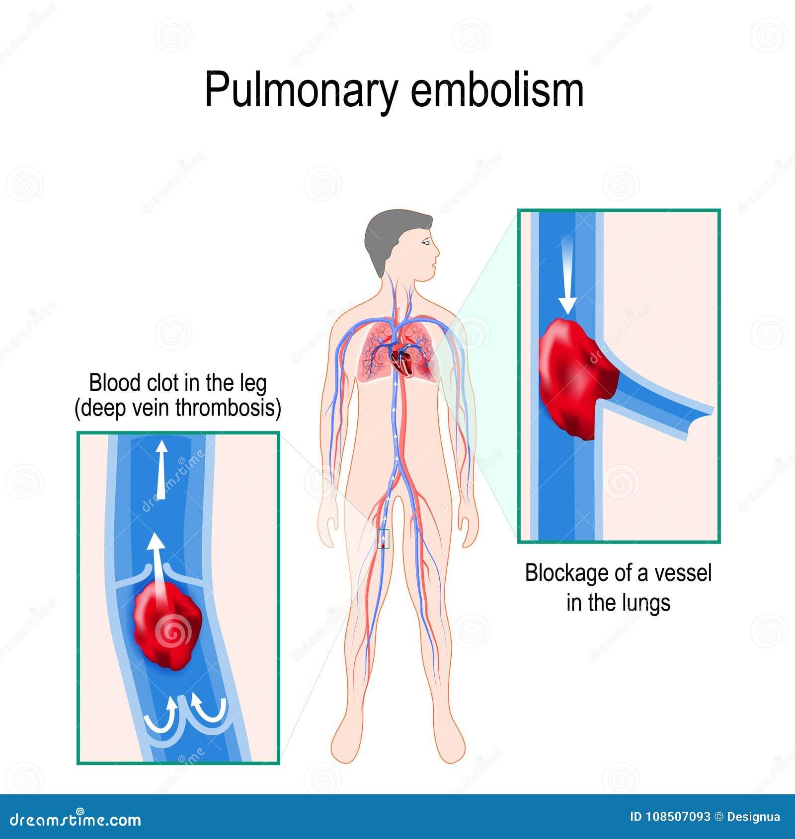 Lung- blodpropp Mänsklig kontur med den markerade circulatoren